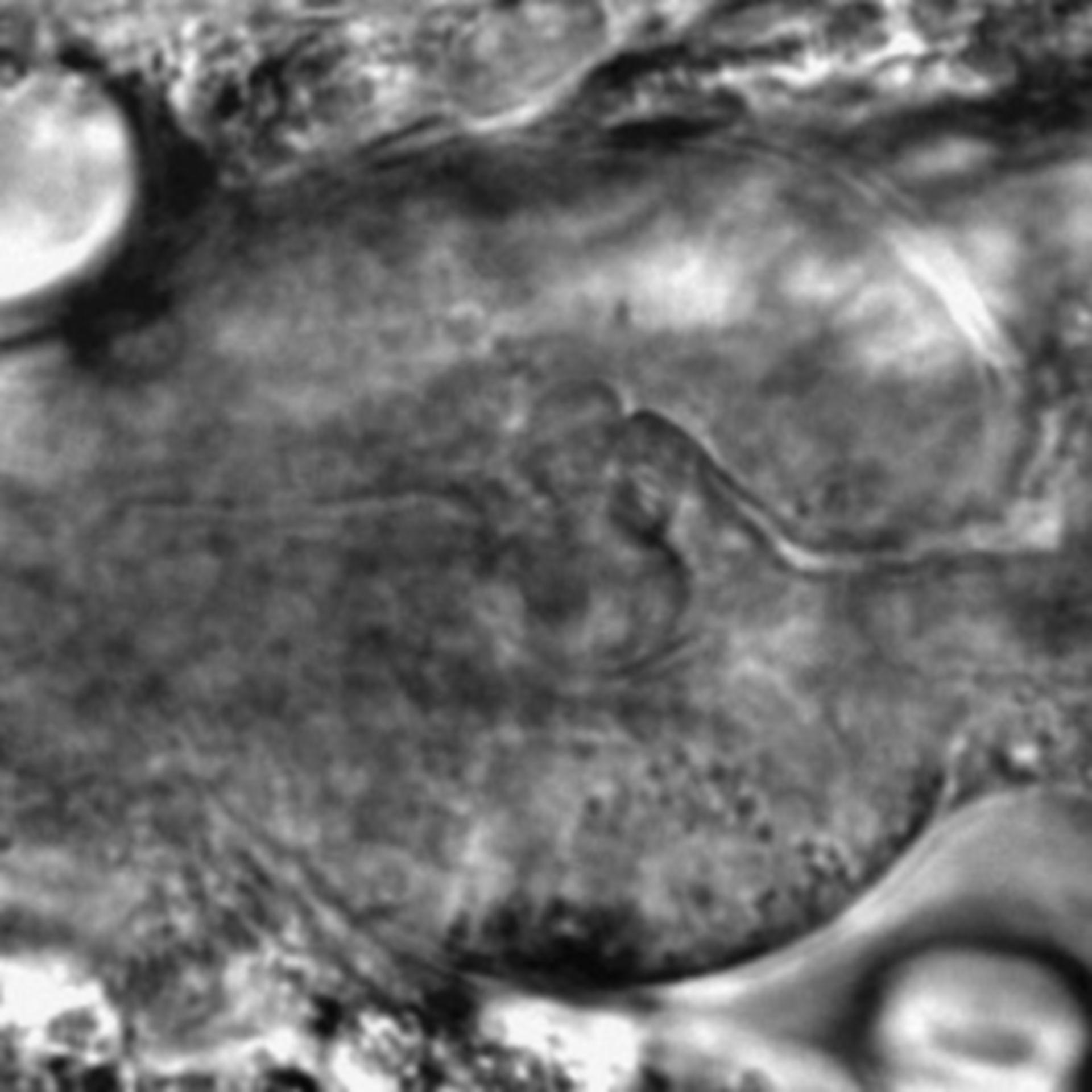 Caenorhabditis elegans - CIL:2269