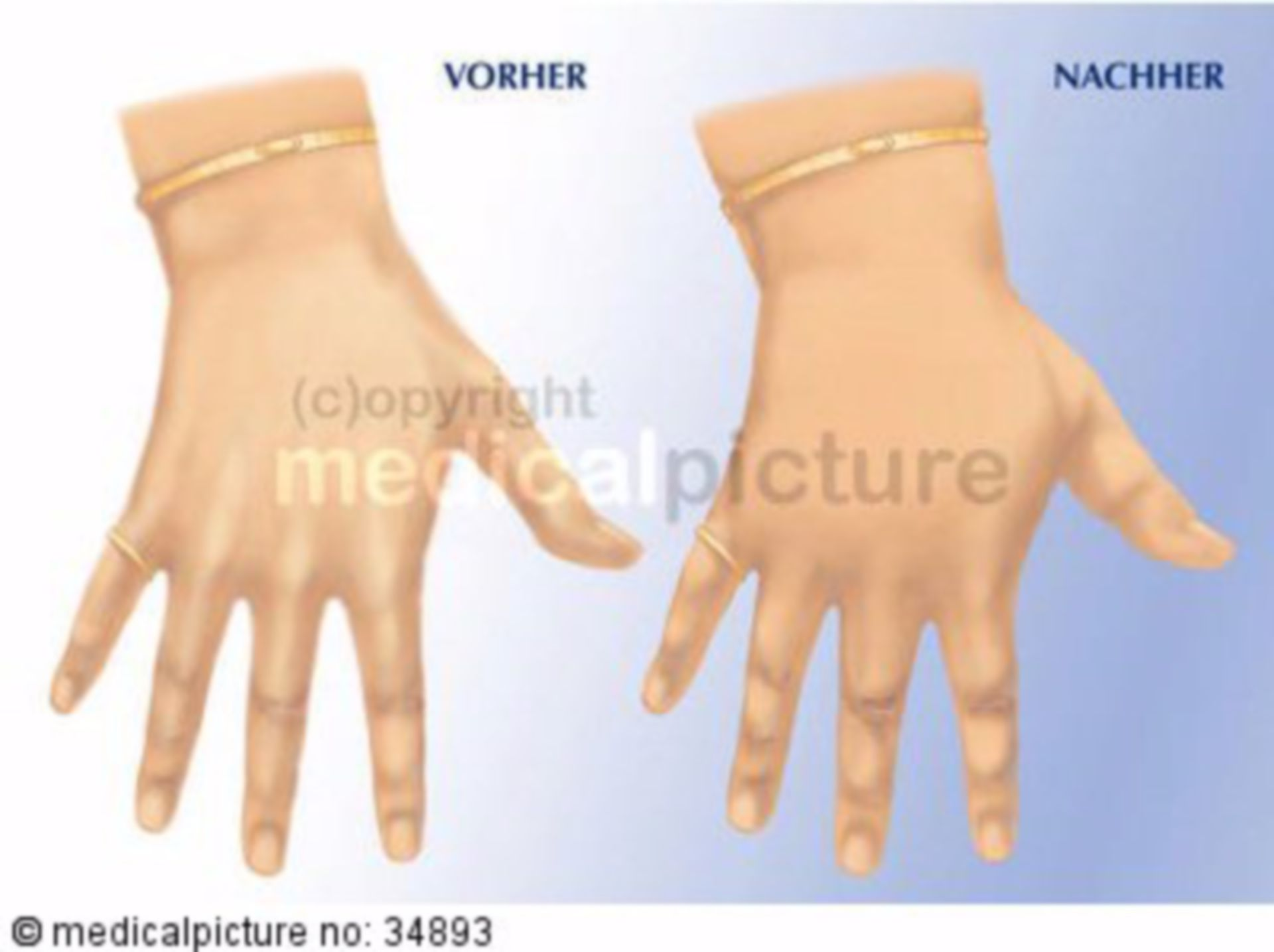 Edema of the Hand