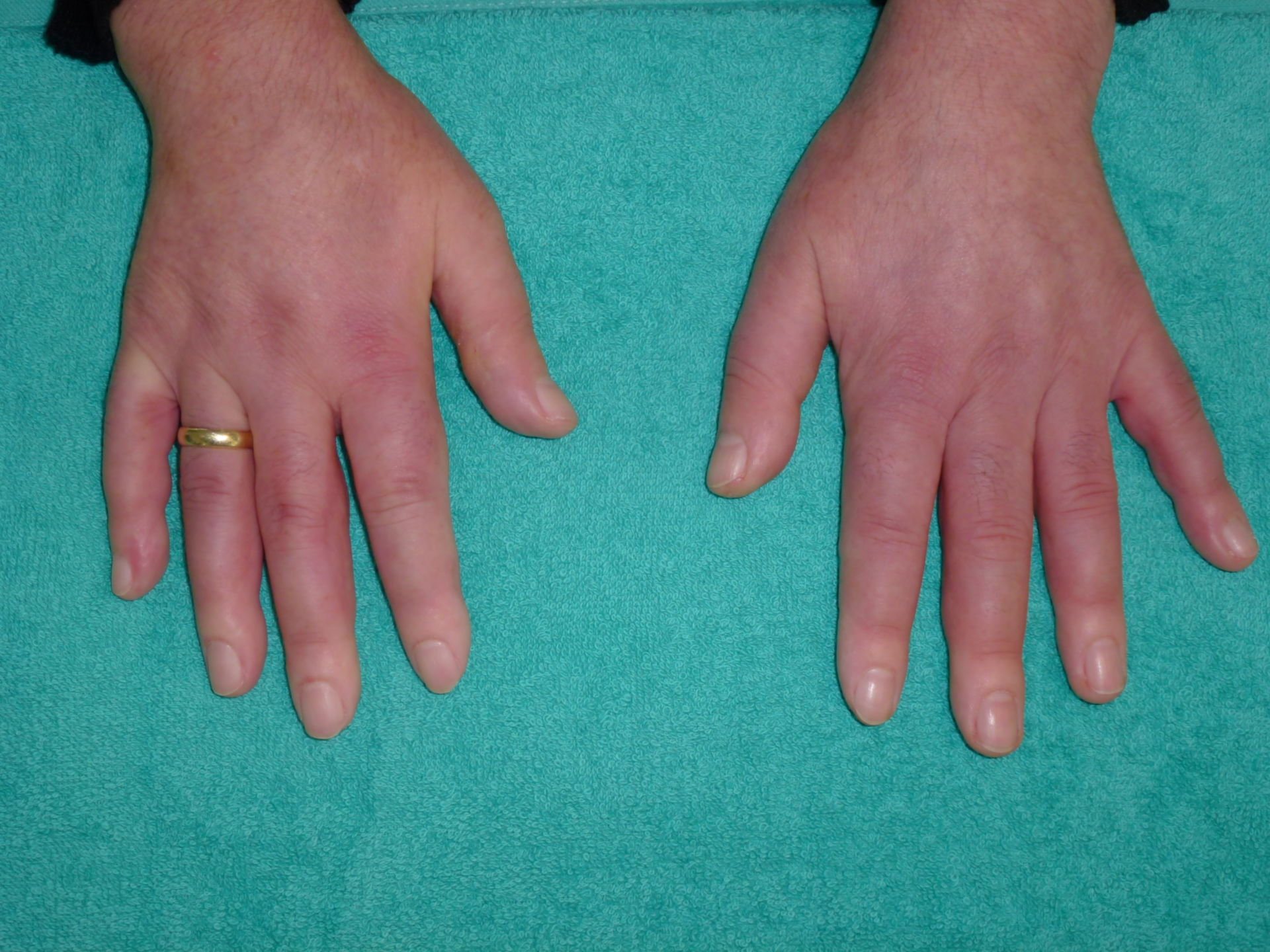 Sklerodermie Hände (1)