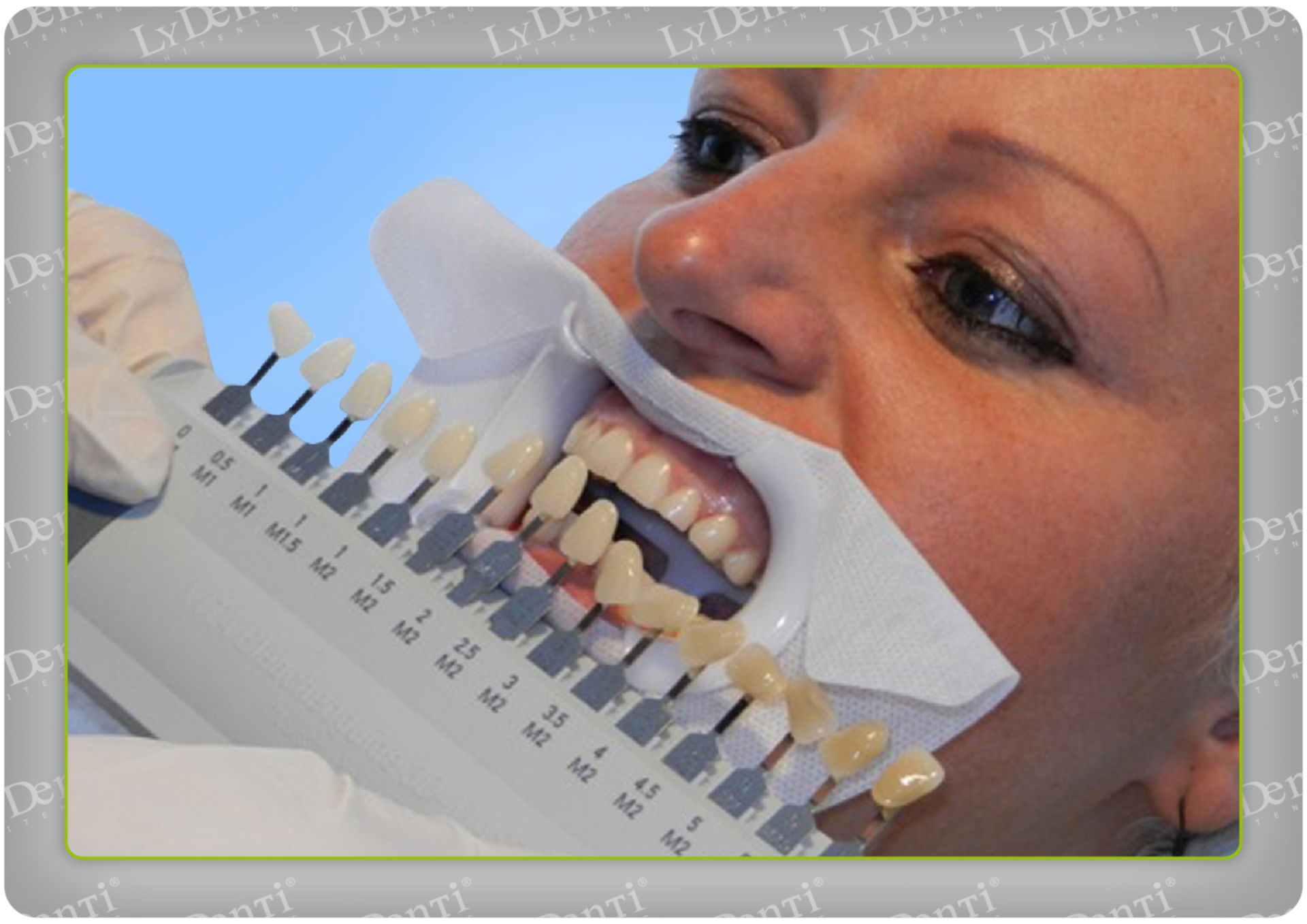 Blanqueamiento dental (12)