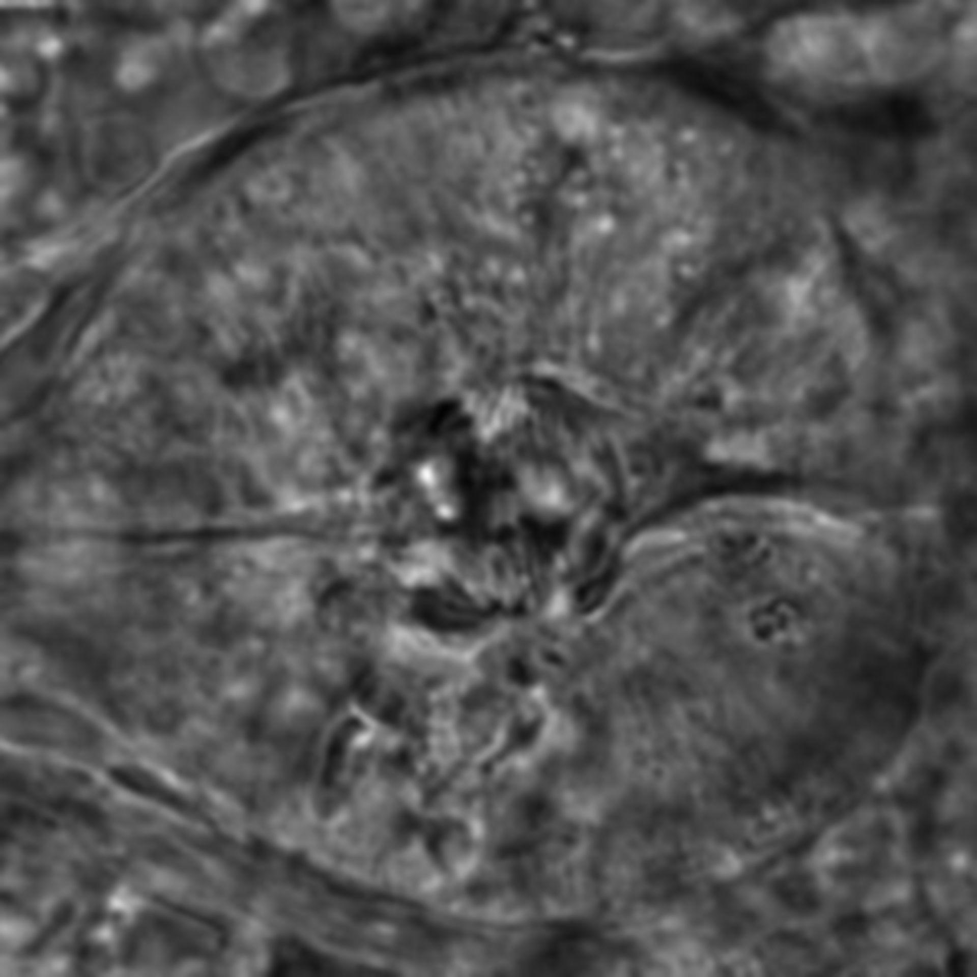 Caenorhabditis elegans - CIL:2636