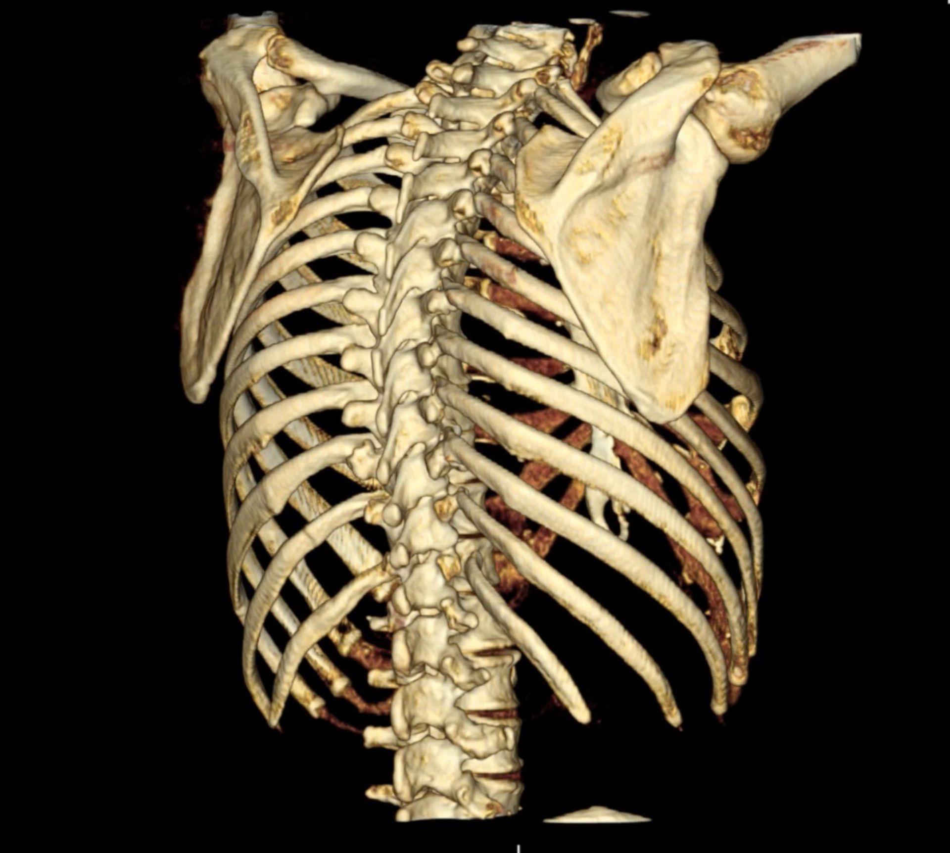 3D-Rekonstruktion einer CT des Thorax mit Ansicht von dorsal mit Rippenfraktur