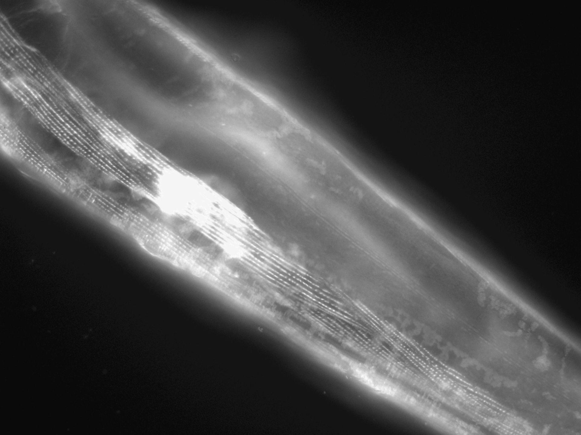 Caenorhabditis elegans (filamento di actina) - CIL:1187