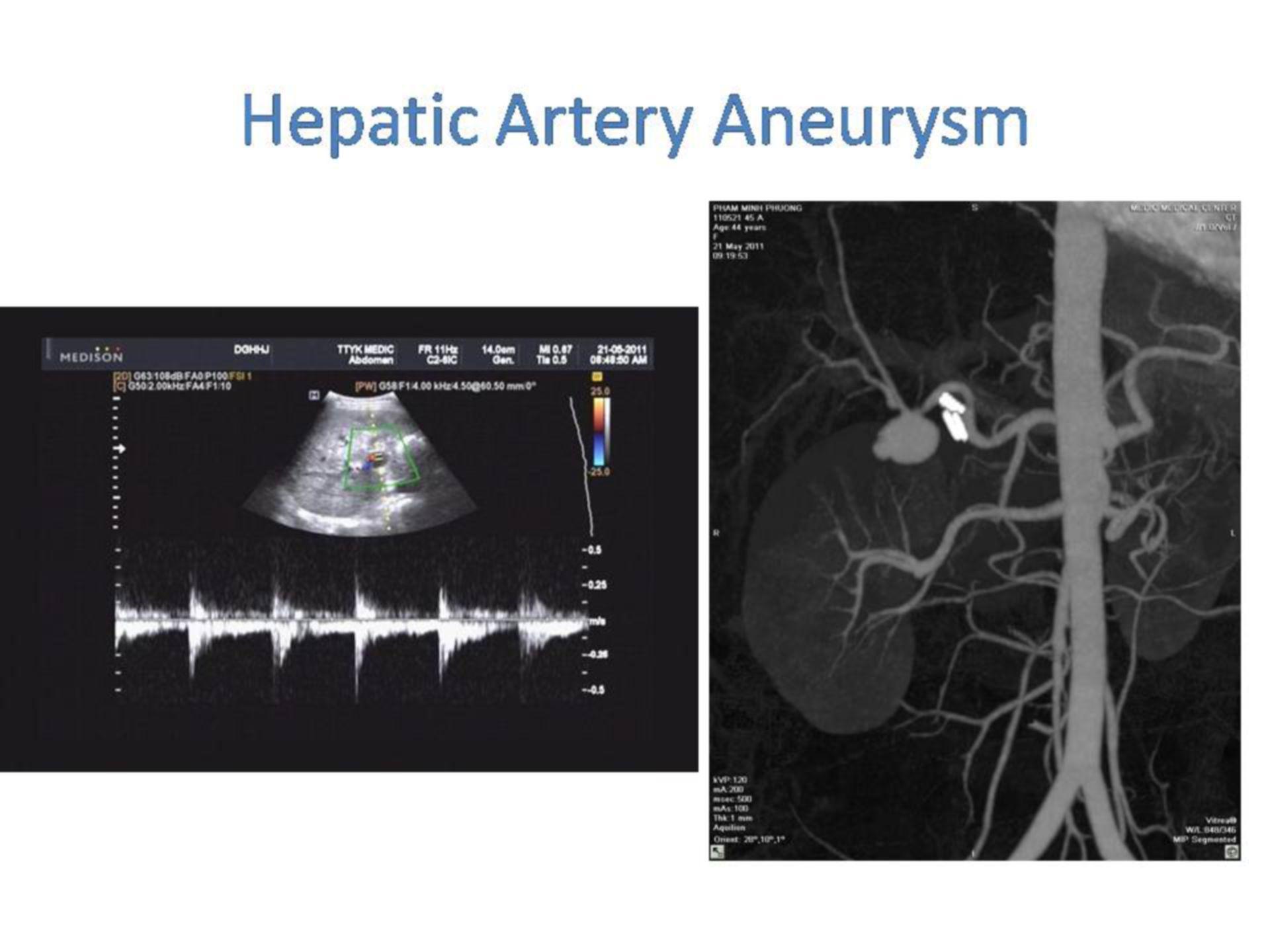 Aneurisma de la arteria hepática