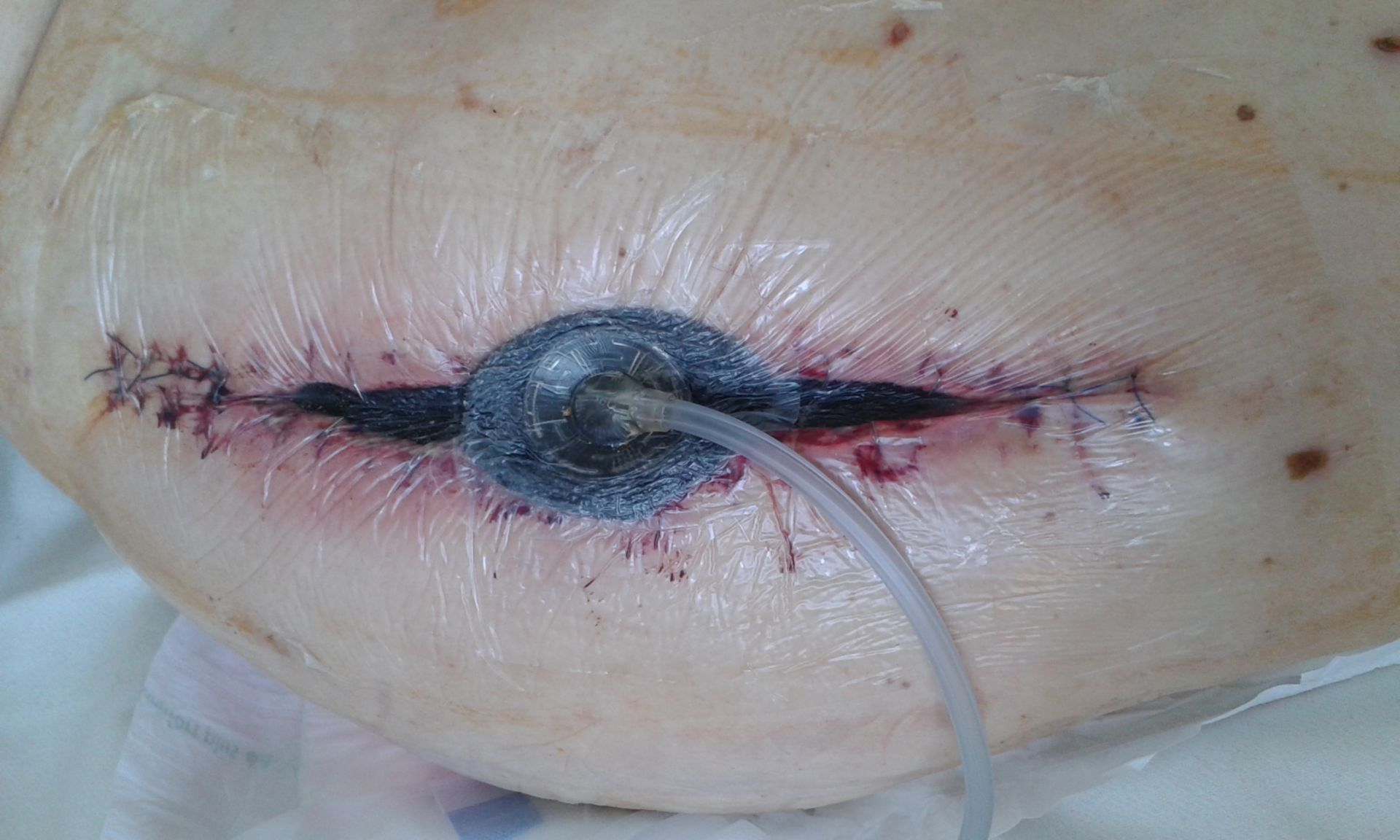 Vacuum bandage to help with a wound healing disorder (1)