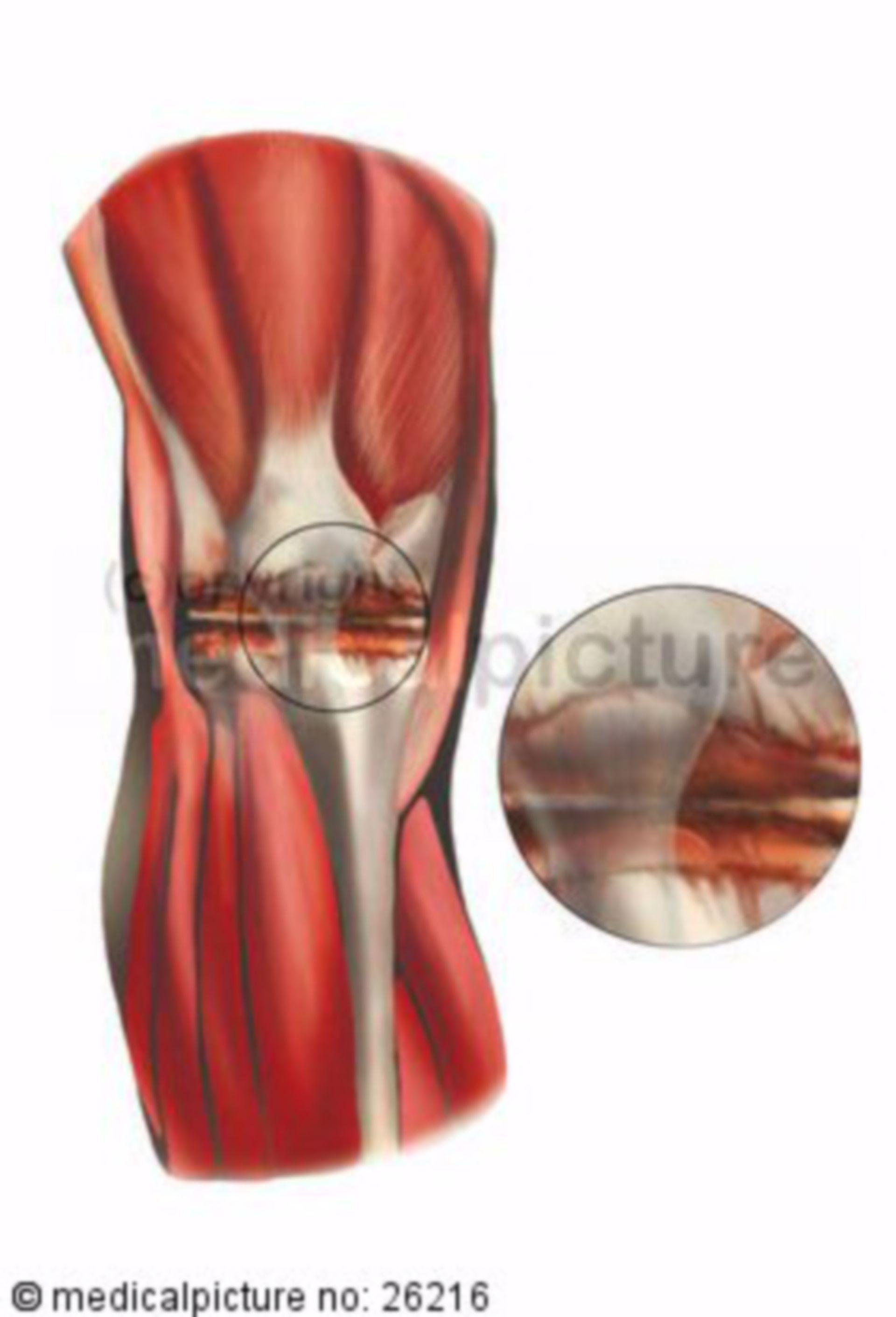 Arthritis im Kniegelenk