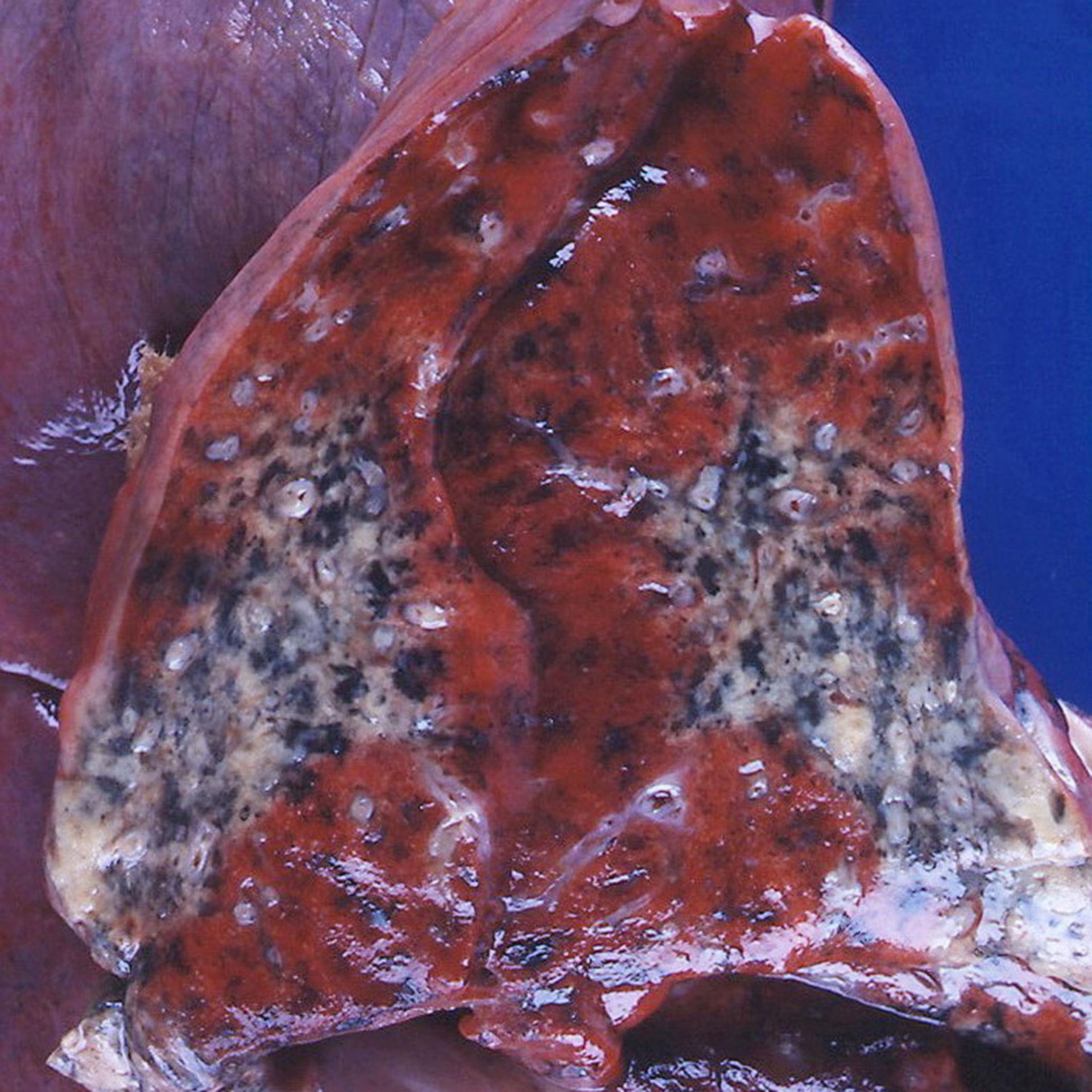 Wegenersche Granulomatose