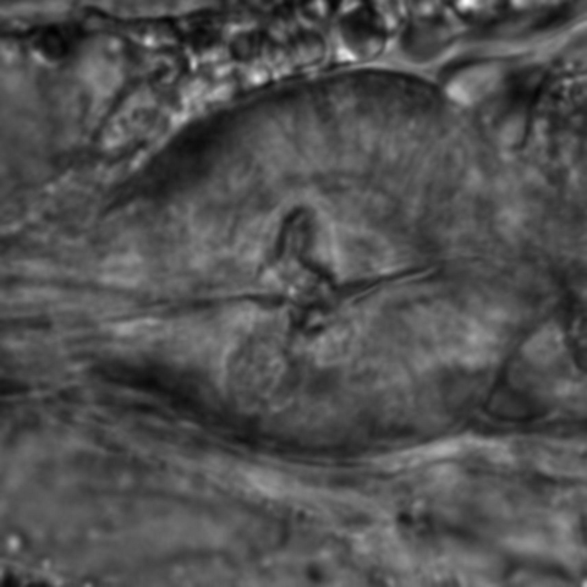 Caenorhabditis elegans - CIL:1794