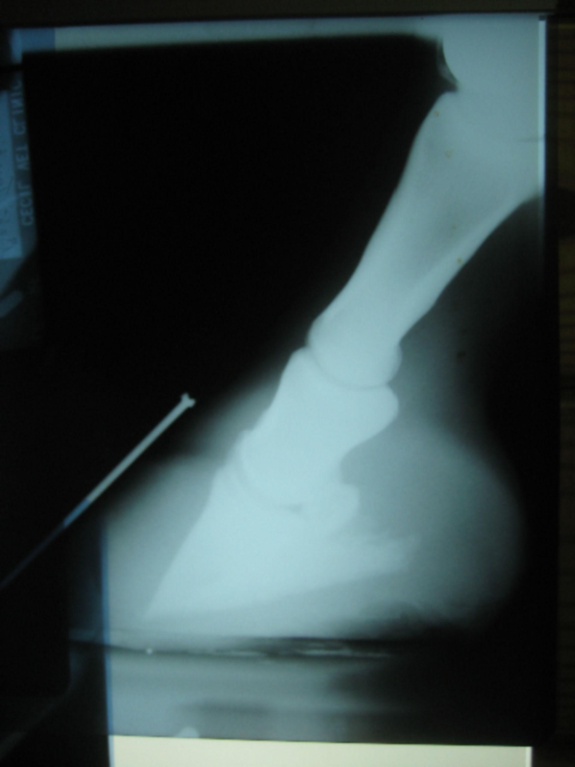 Röntgenaufnahme einer chonischen Hufrehe