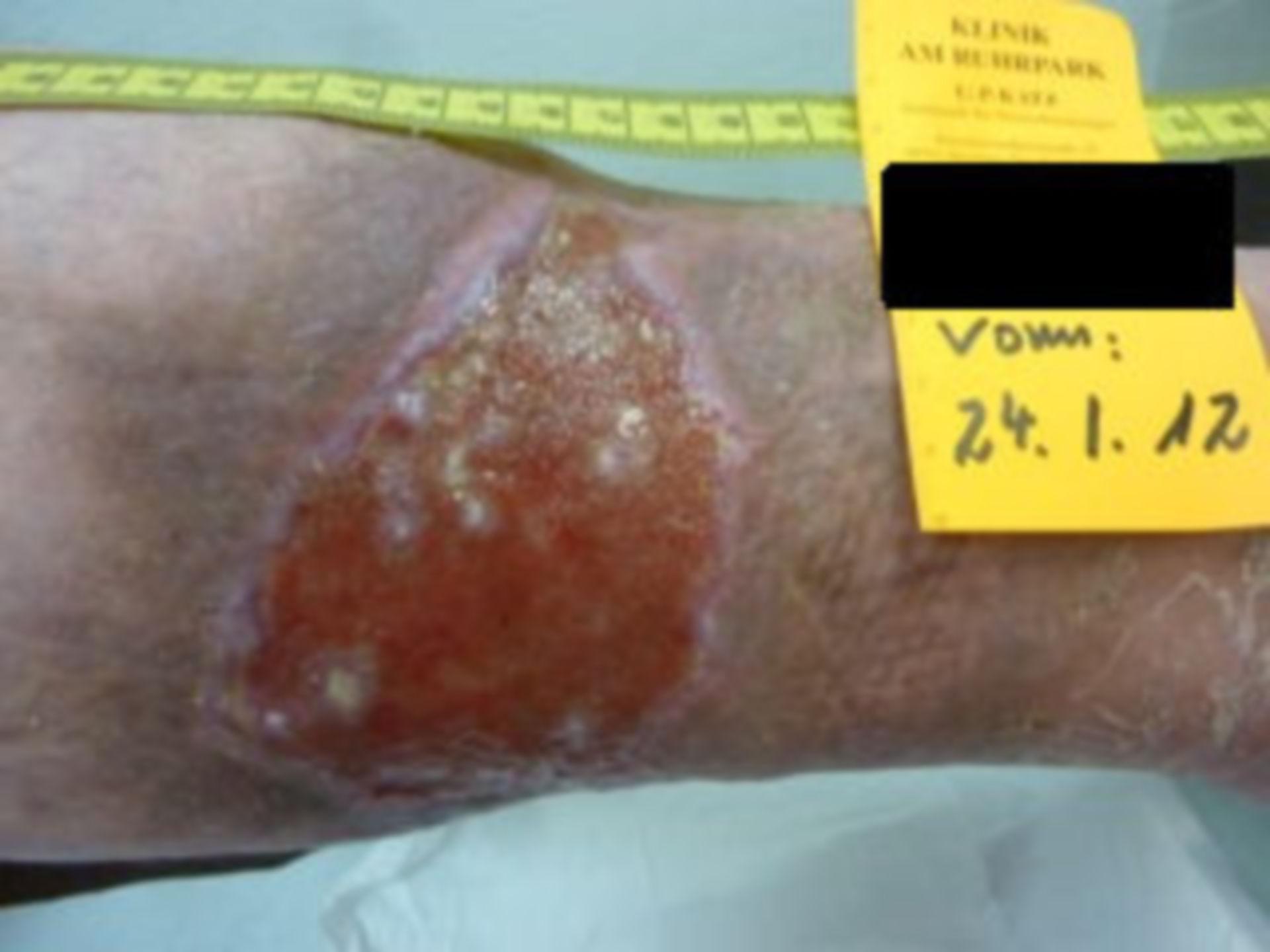 Úlcera de la pierna, abierta por 7 años (26) - 24.01.12