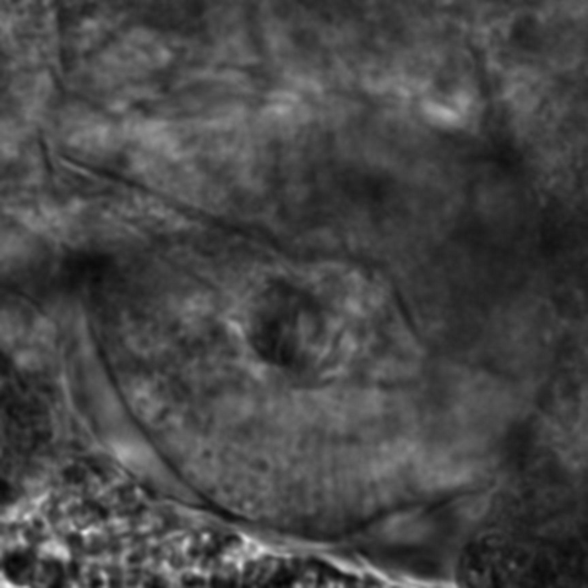 Caenorhabditis elegans - CIL:2244