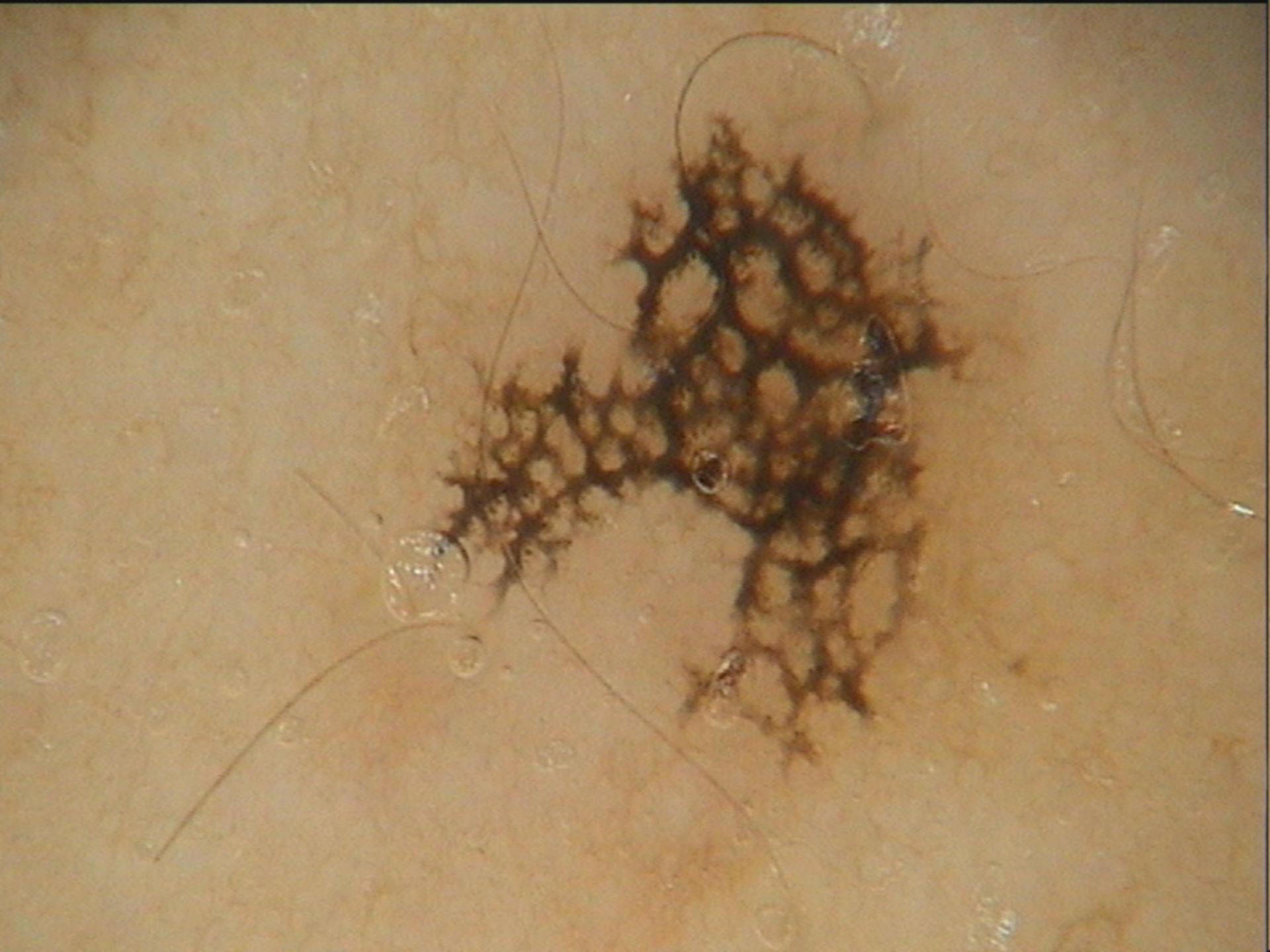 Ink spot (2)