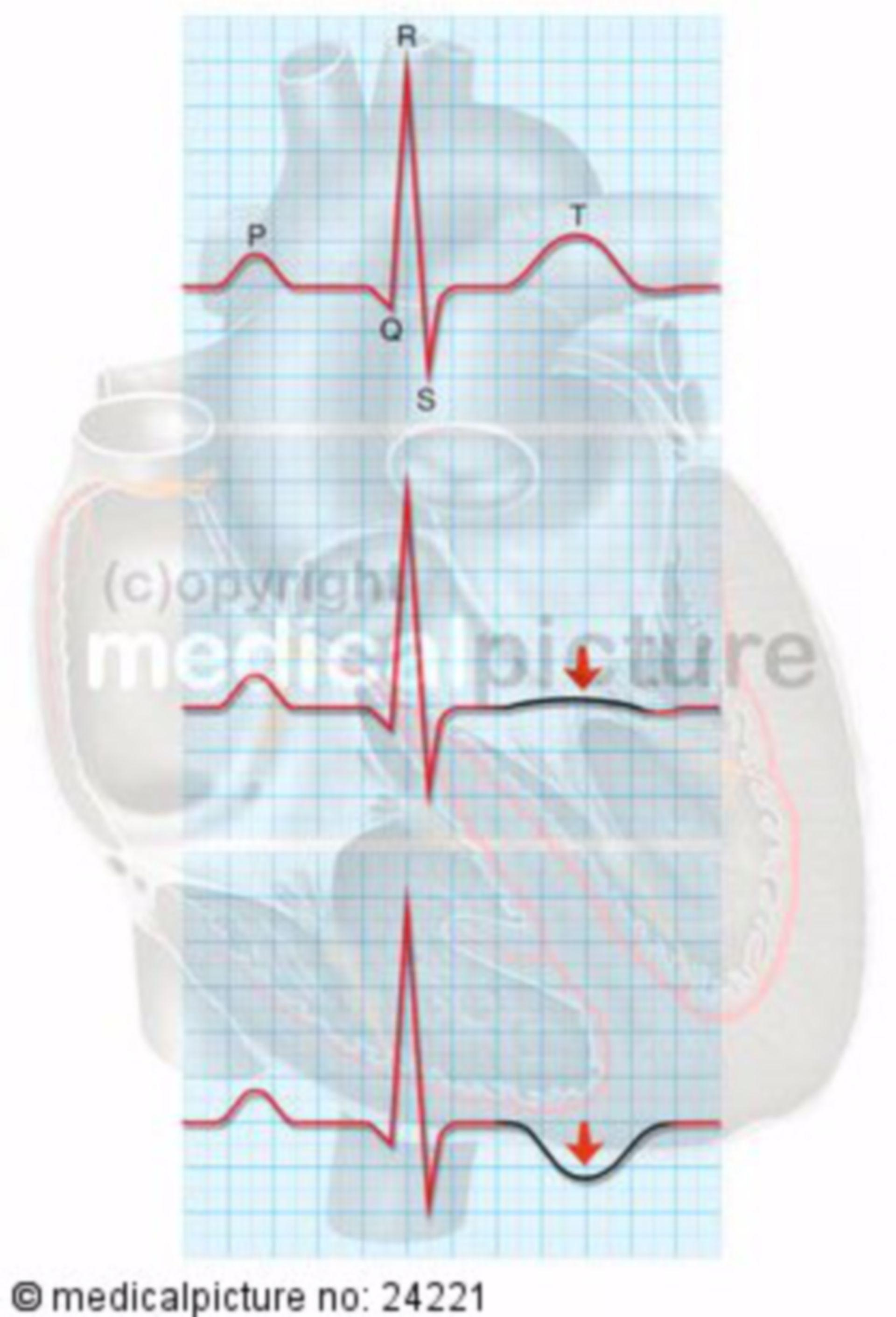 La cardiomiopatia da stress ECG