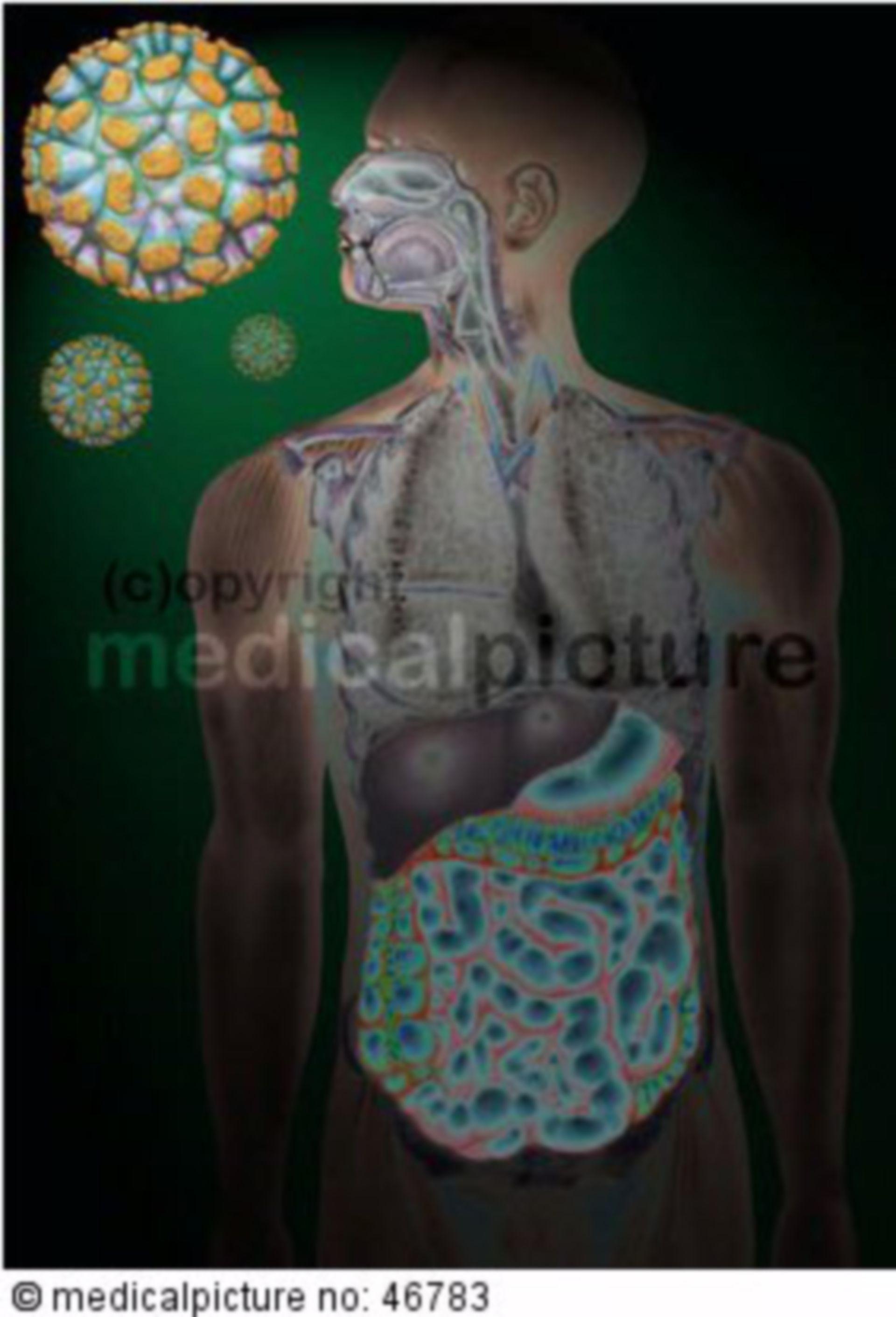 Norwalk Virus, Norovirus mit Verdauungsapparat