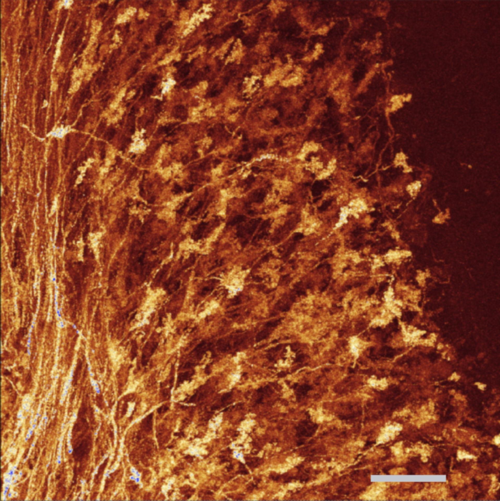Moosfasern cerebellum