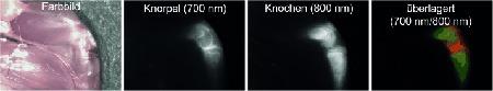 Fluorophore als Kontrastmittel, um Knorpelgewebe mit ausgezeichetem Signal-Rausch-Verhältnis abzubilden. © Wiley-VCH