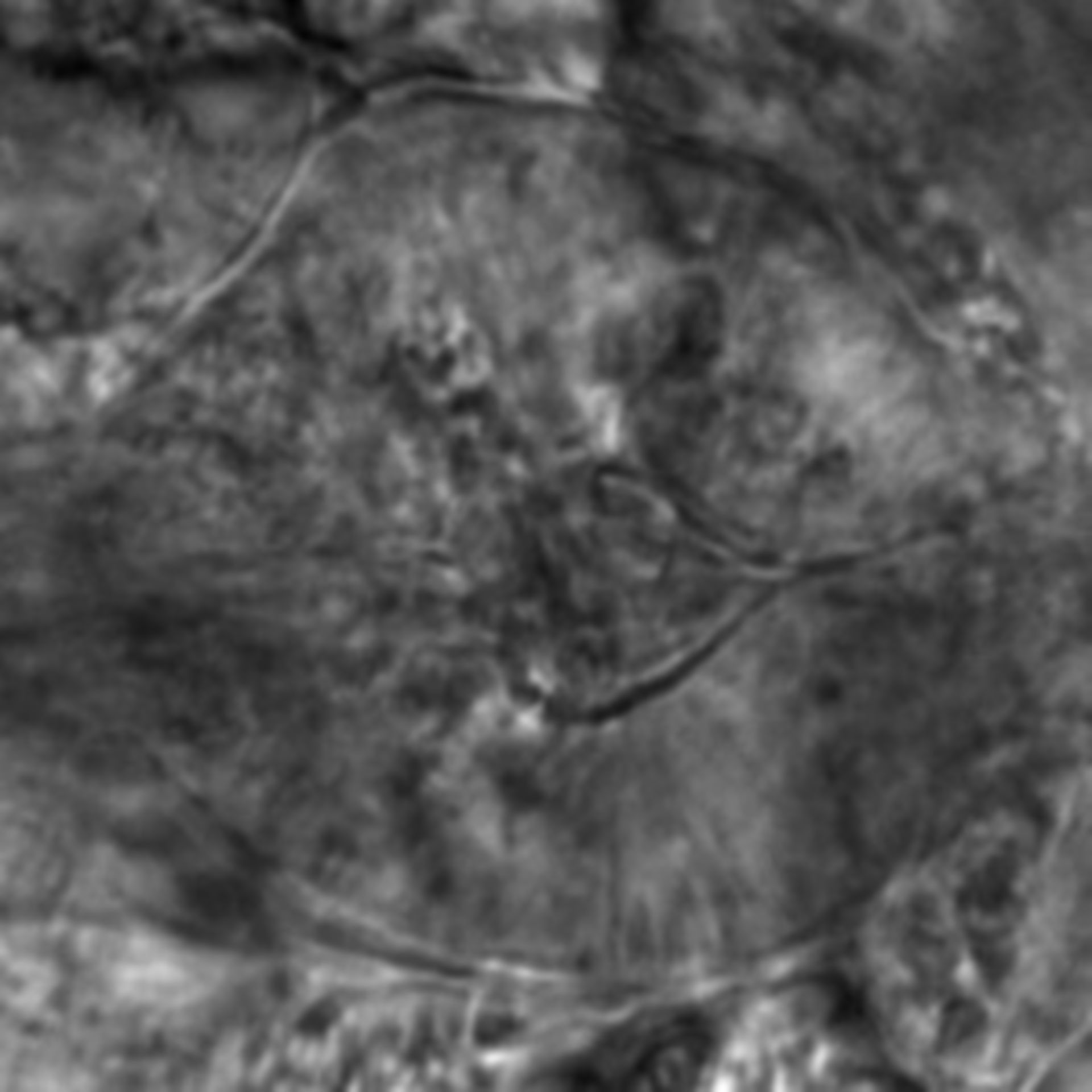 Caenorhabditis elegans - CIL:2560