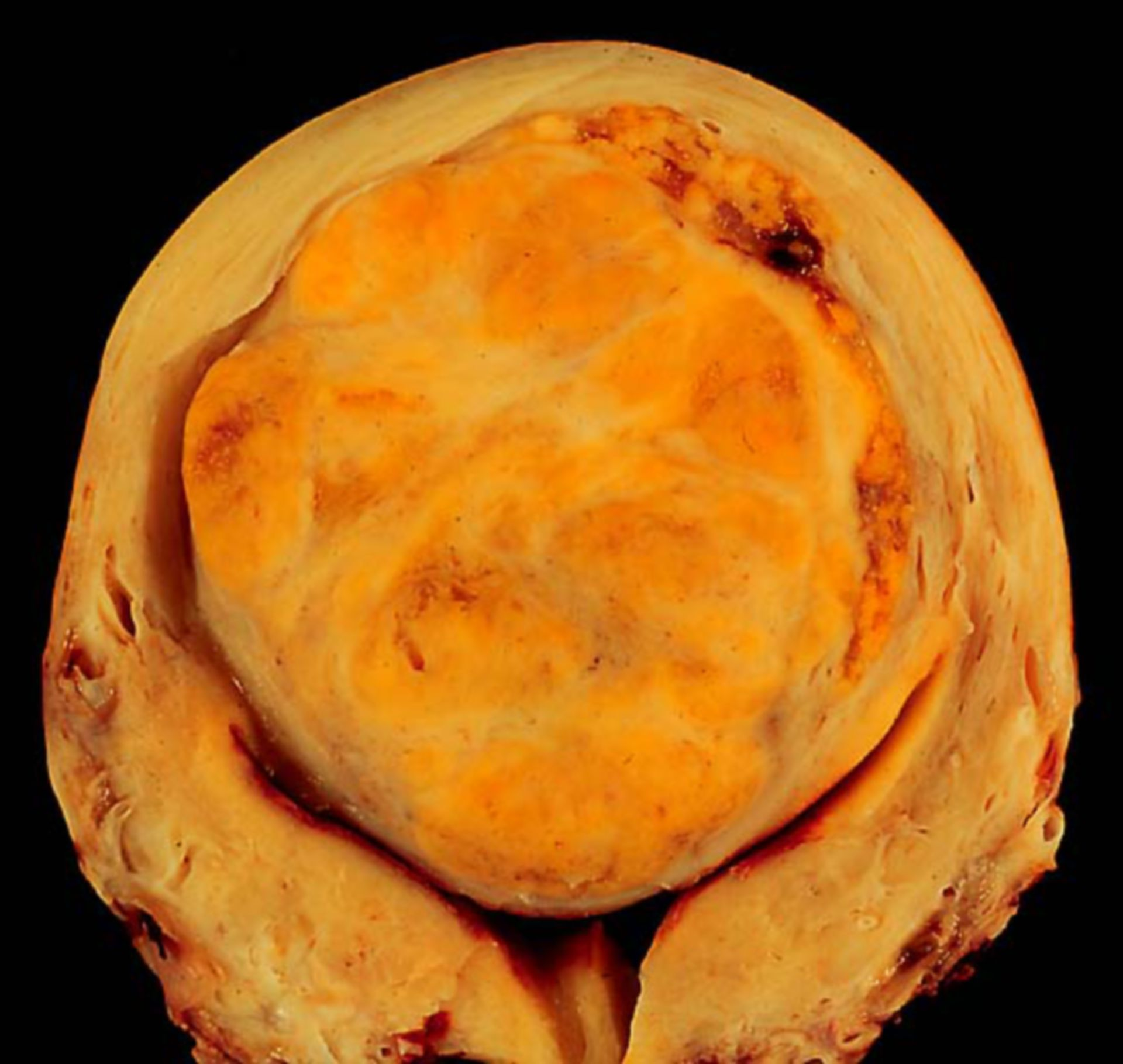 Uterus-Leiomyom (Präparat)