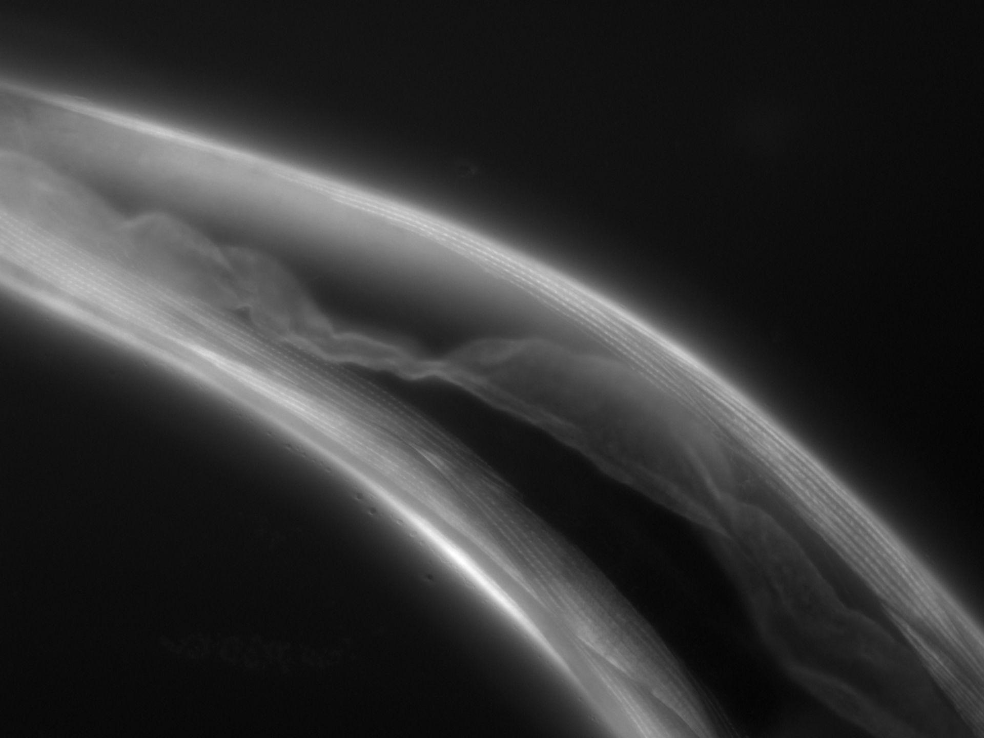 Caenorhabditis elegans (Actin filament) - CIL:1074