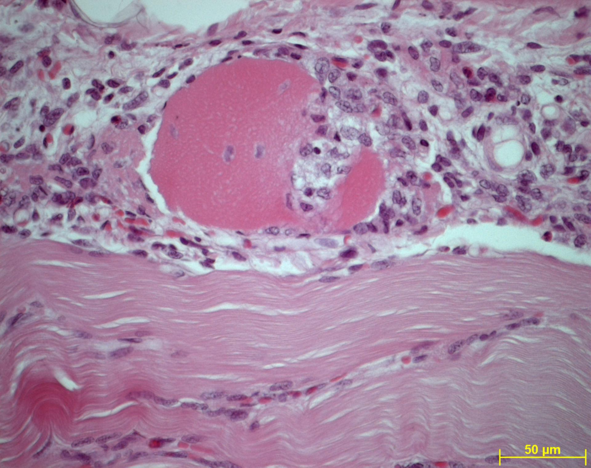 Myozytolyse