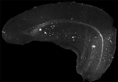 Im Fall der Alzheimer-Demenz entwickeln sich im Tiermodell altersabhängig Ablagerungen des Amyloid-Beta-Proteins im Gehirn. Diese können markiert und mit einem Fluoreszenzmikroskop sichtbar gemacht werden. © Dr. Albrecht Clement