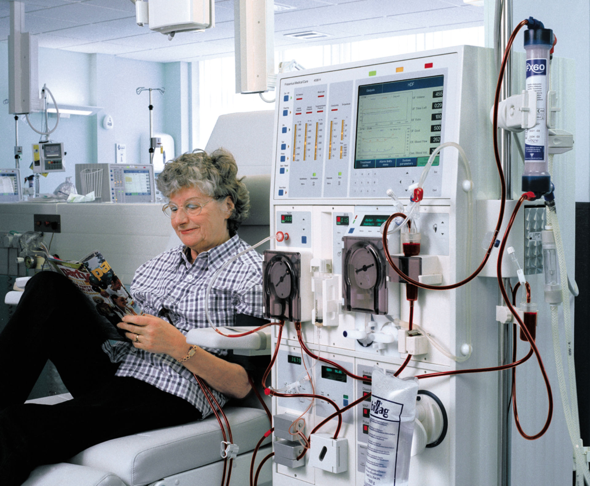 Dialysis apperatus