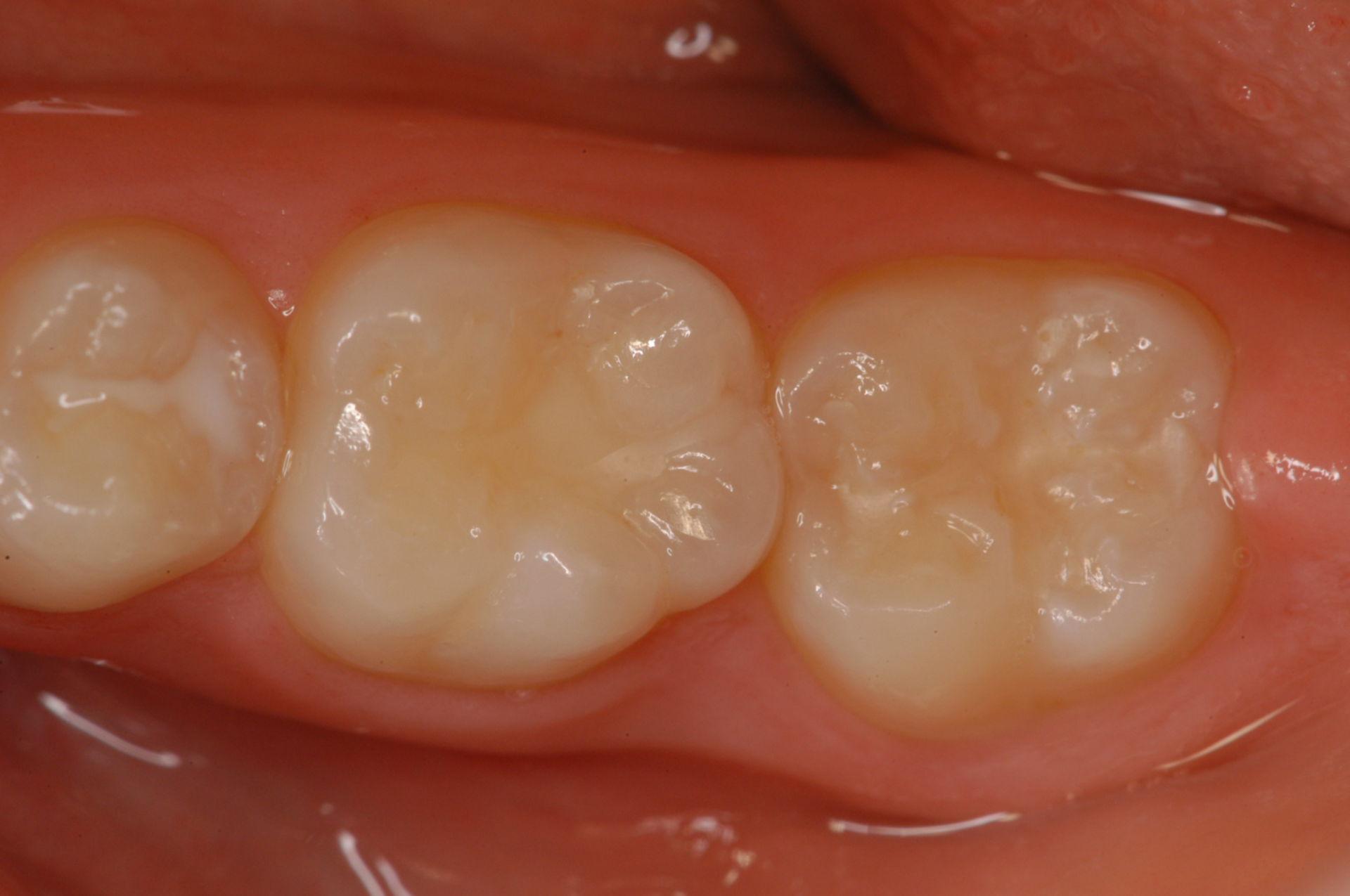 molari carie senza sinistra