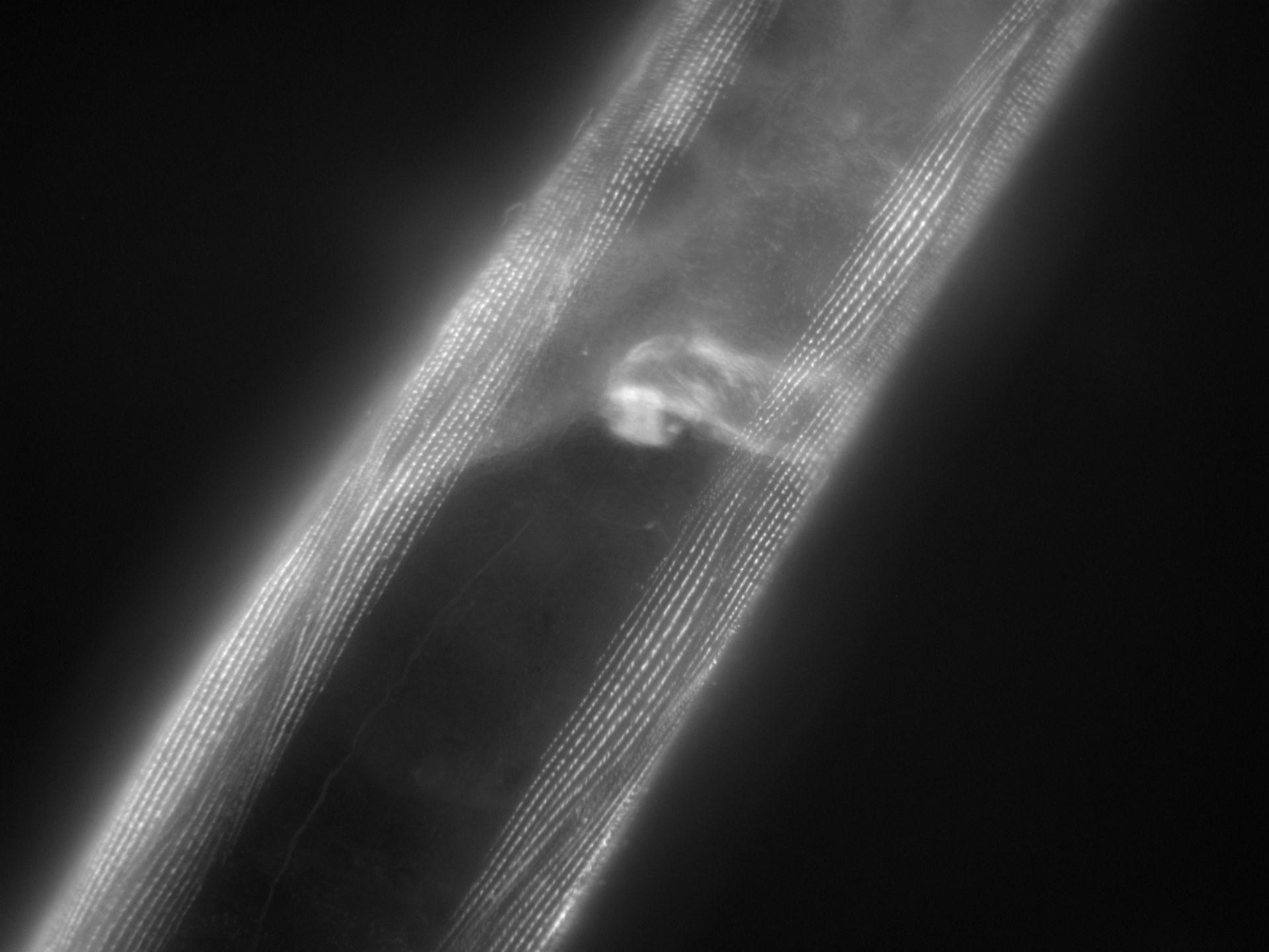 Caenorhabditis elegans (Actin filament) - CIL:1176