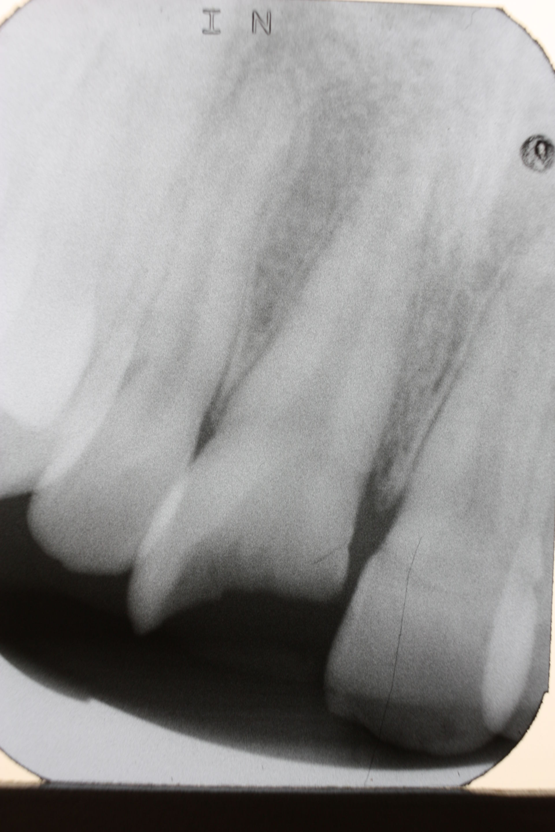 Front tooth trauma (2)