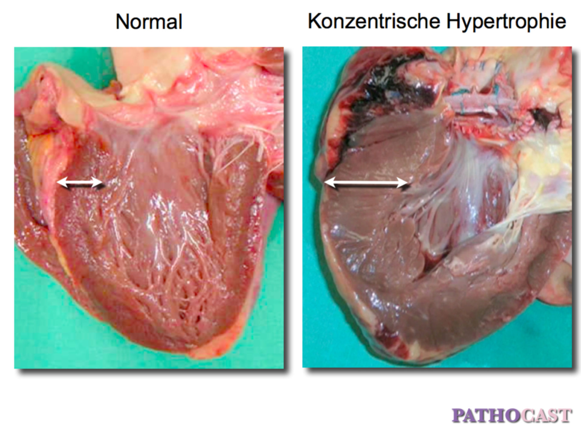 concentric myocardial hypertrophy