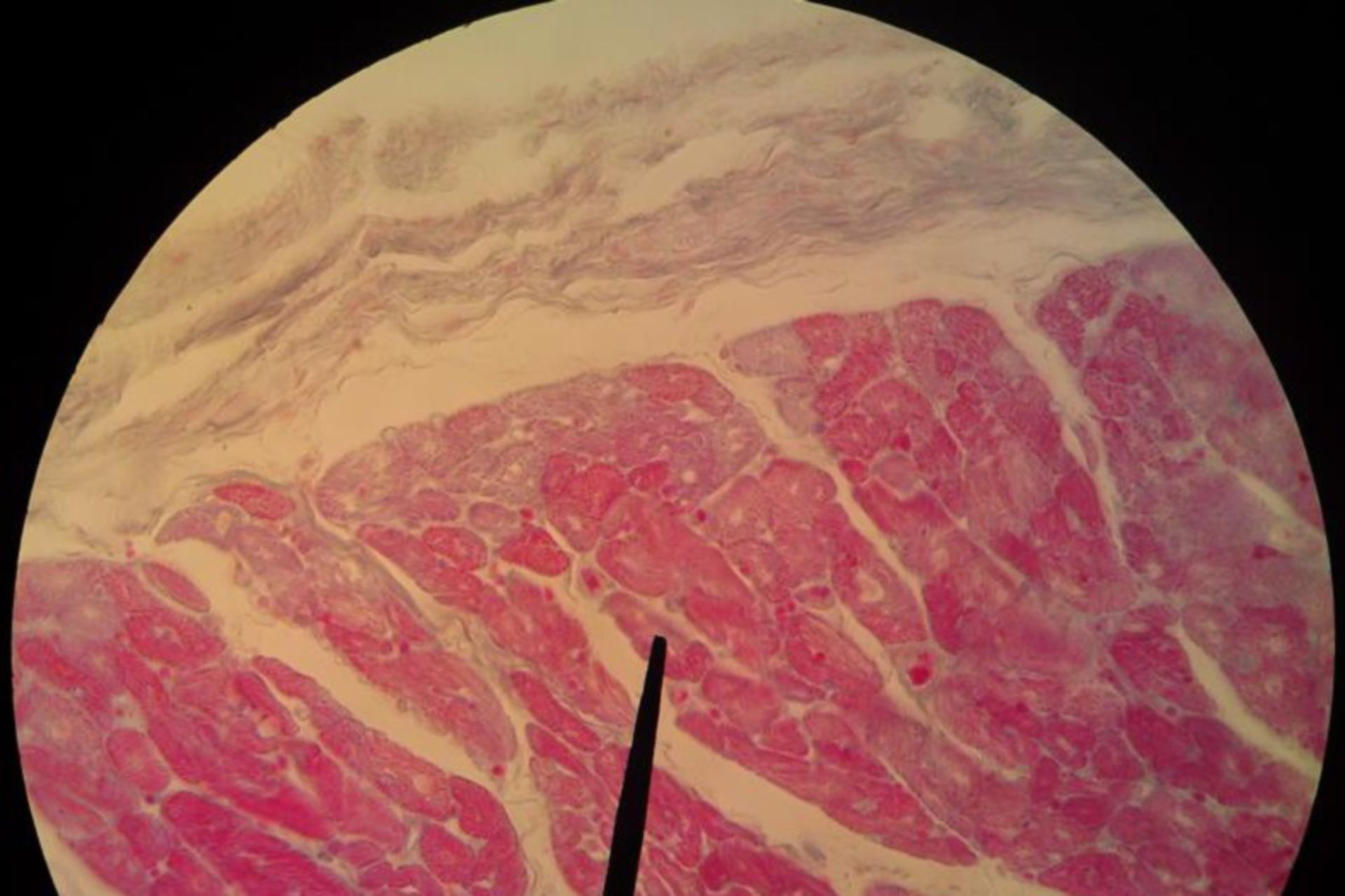 heart muscle-pig