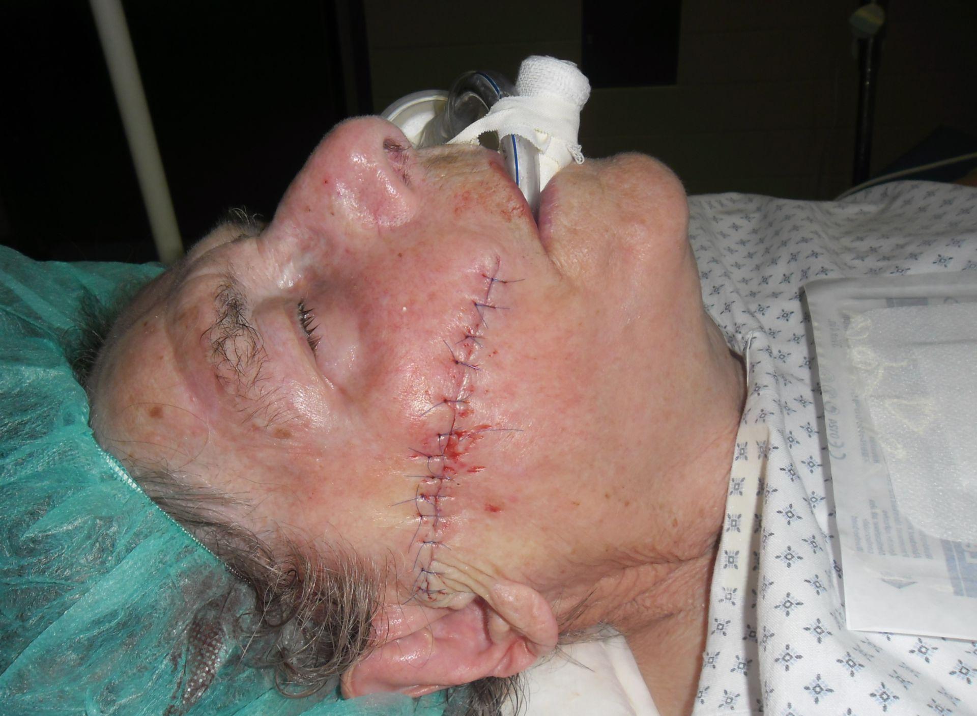 Carcinoma basocelular de la mejilla derecha después de la excisión