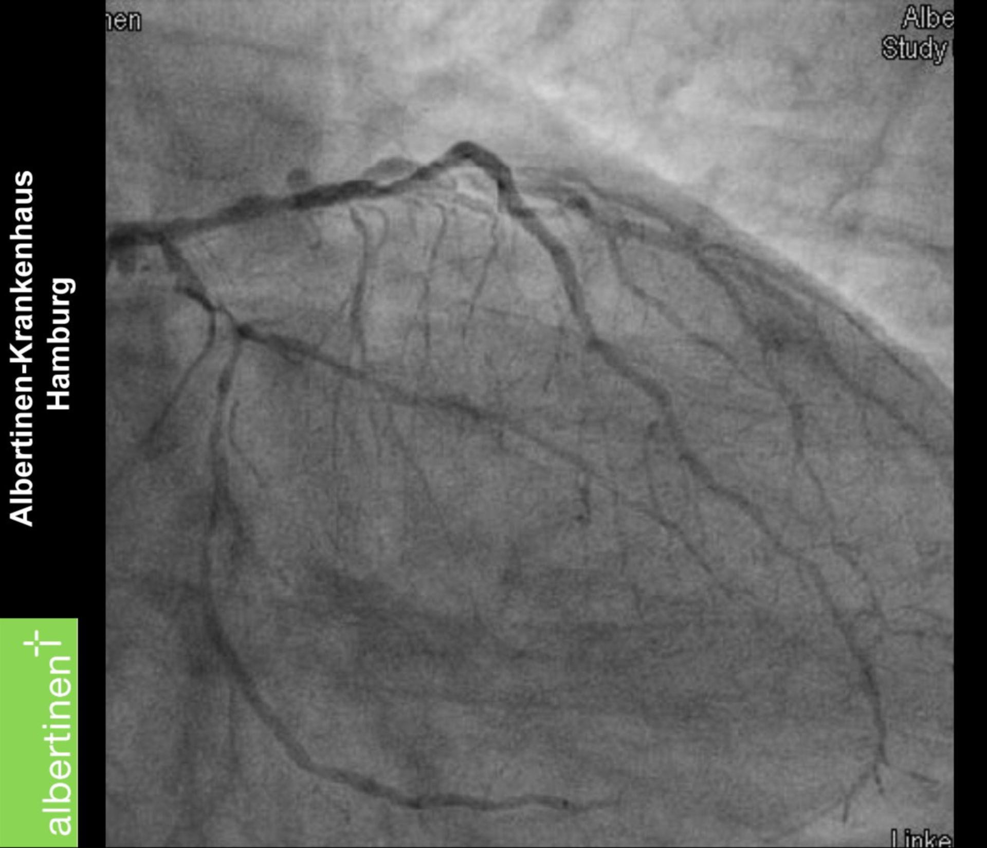 Grave malattia coronarica: angiografia coronarica
