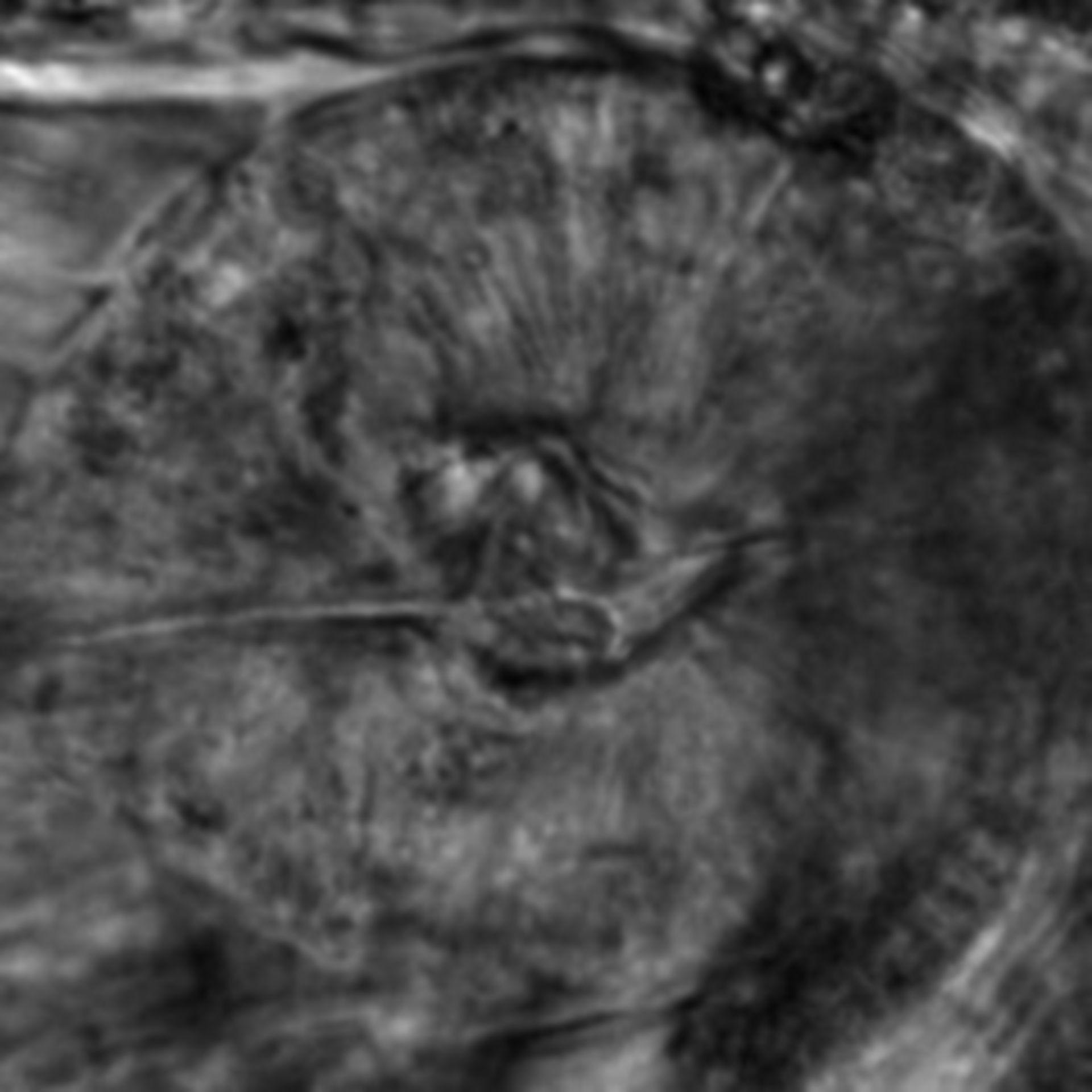 Caenorhabditis elegans - CIL:2639