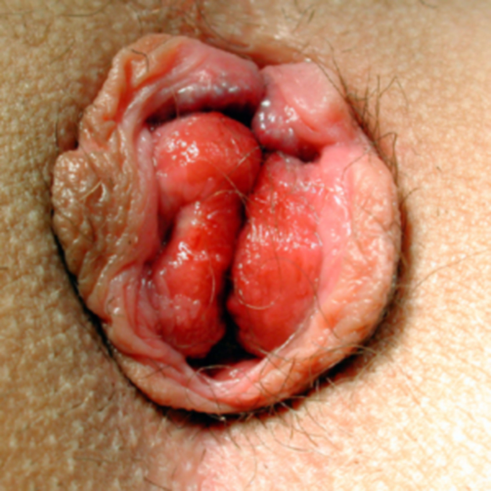 Haemorrhoidal prolapse stage 4