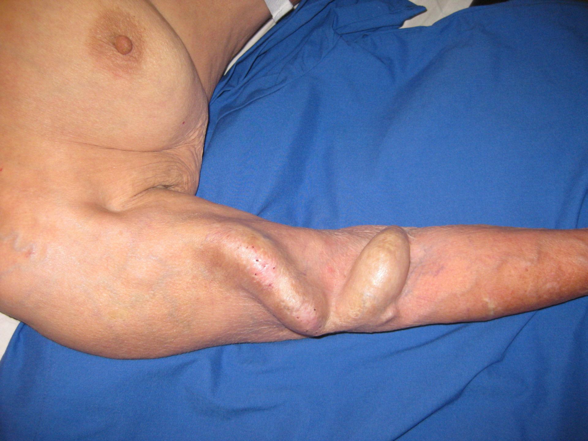 Arteriovenöser Shunt