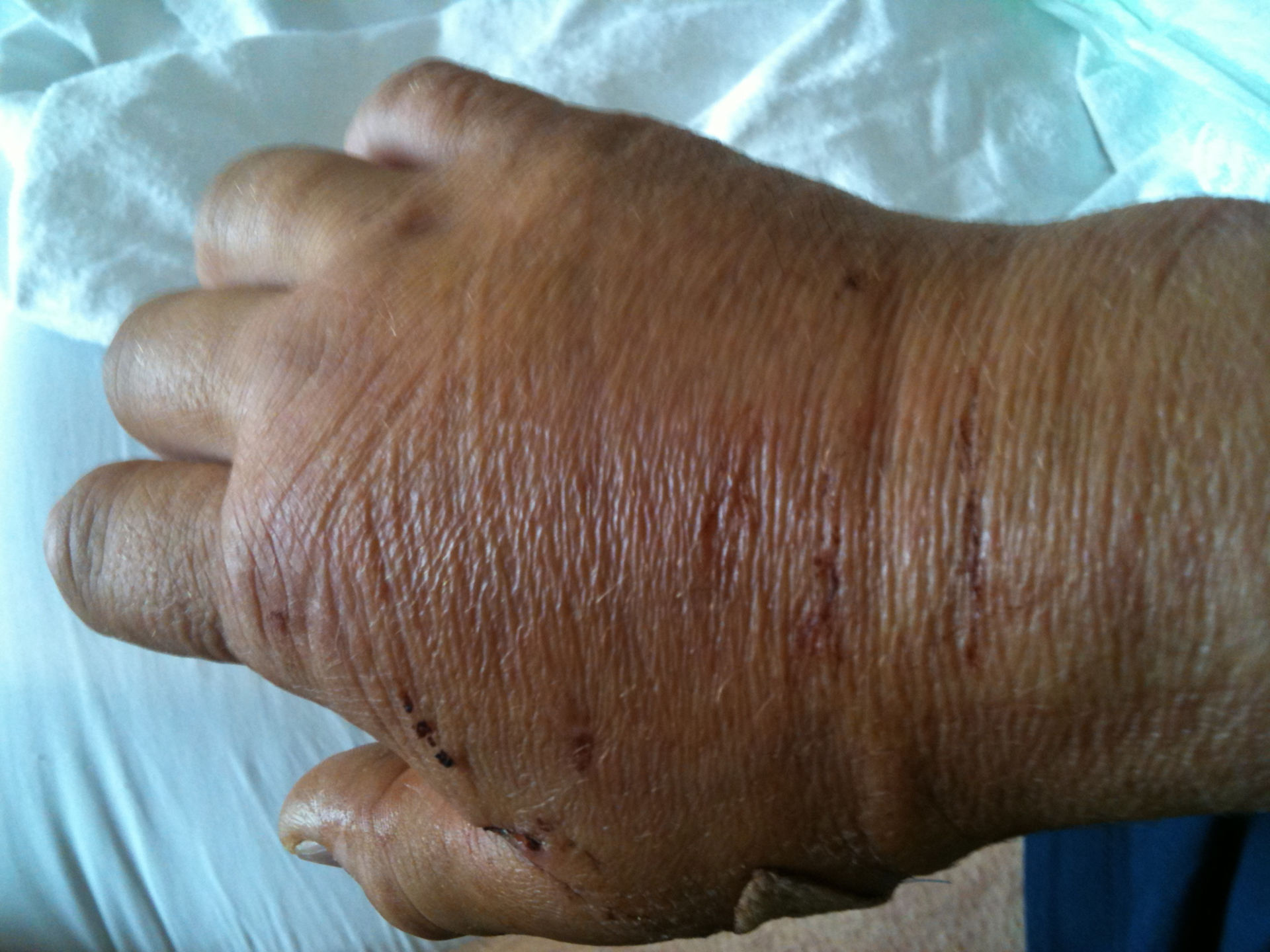 Swelling of the upper right hand