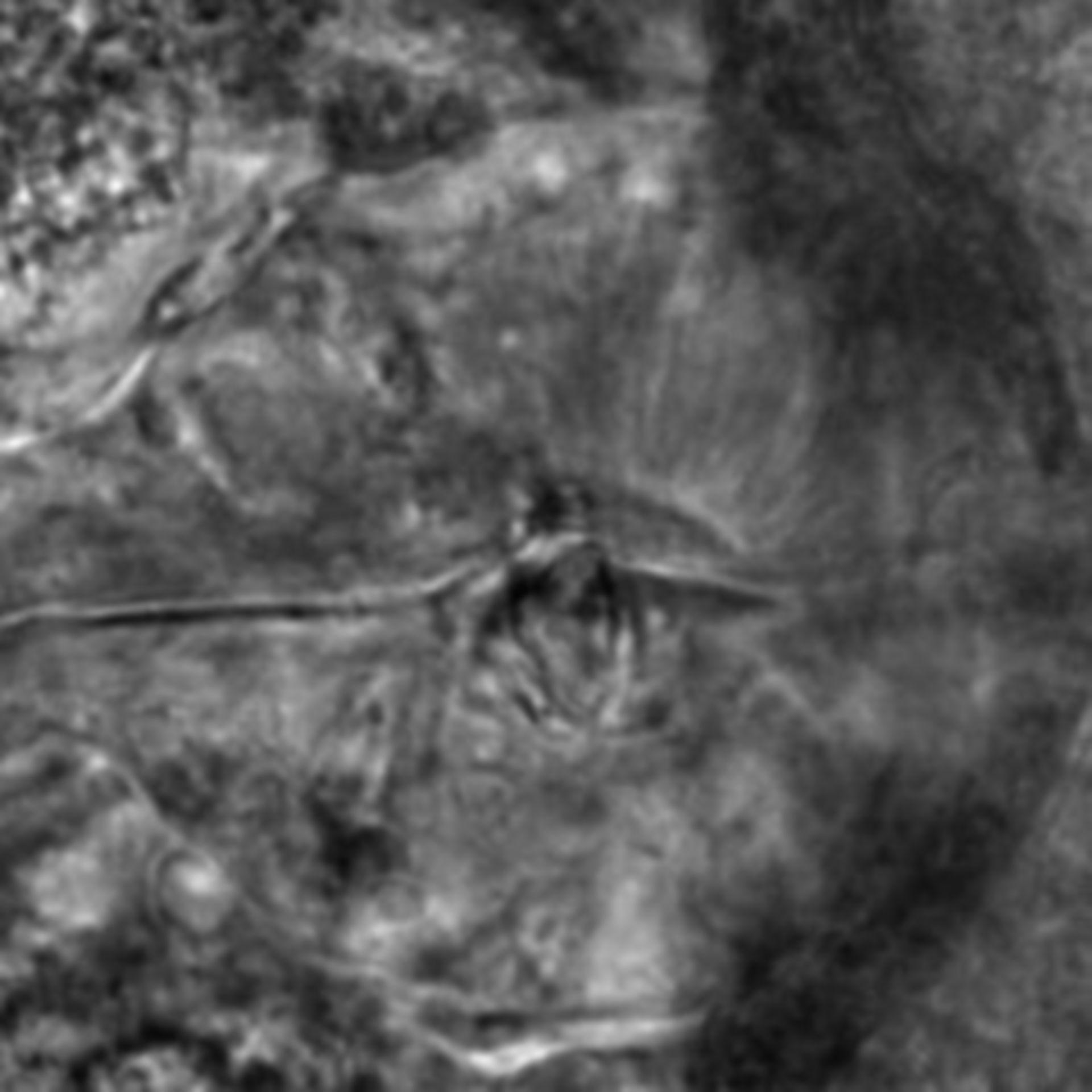 Caenorhabditis elegans - CIL:2545