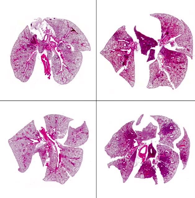 Lungengewebe von Mäusen nach alleiniger Pneumokkoken-Infektion (links) ist weniger entzündet als Lungengewebe von Mäusen mit Doppel-Infektion (rechts) © D. Bruder