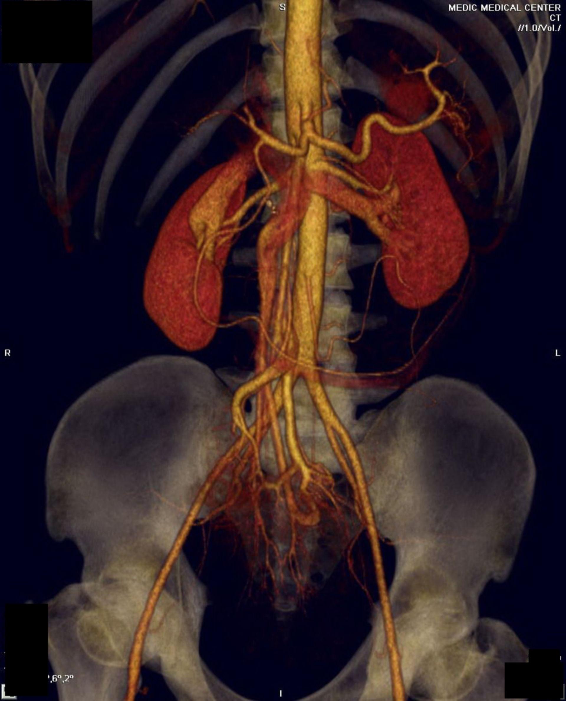 Viszerales Pseudoaneurysma A CT 2 a