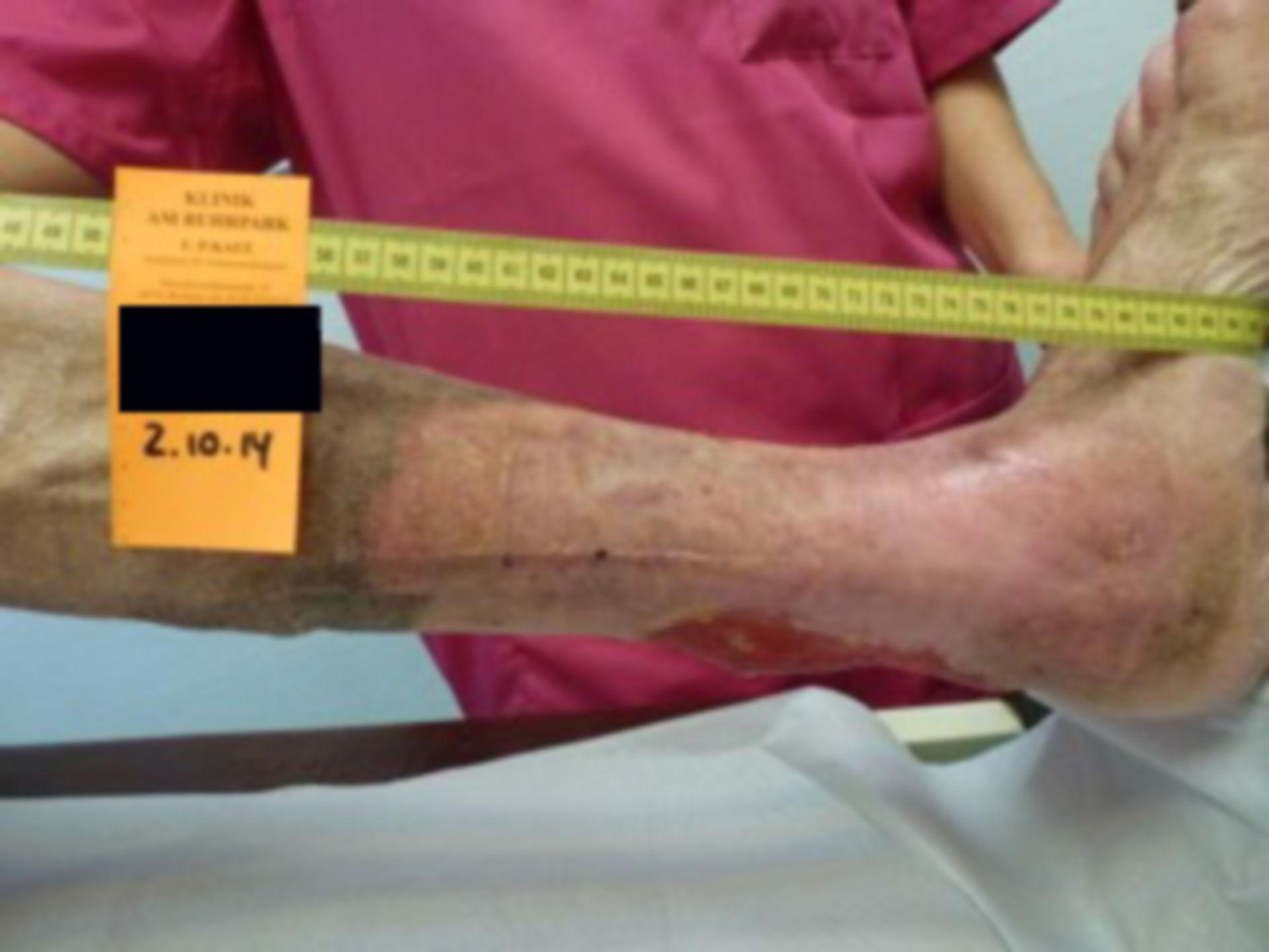 Úlcera de la pierna - abierta por 40 años (26)