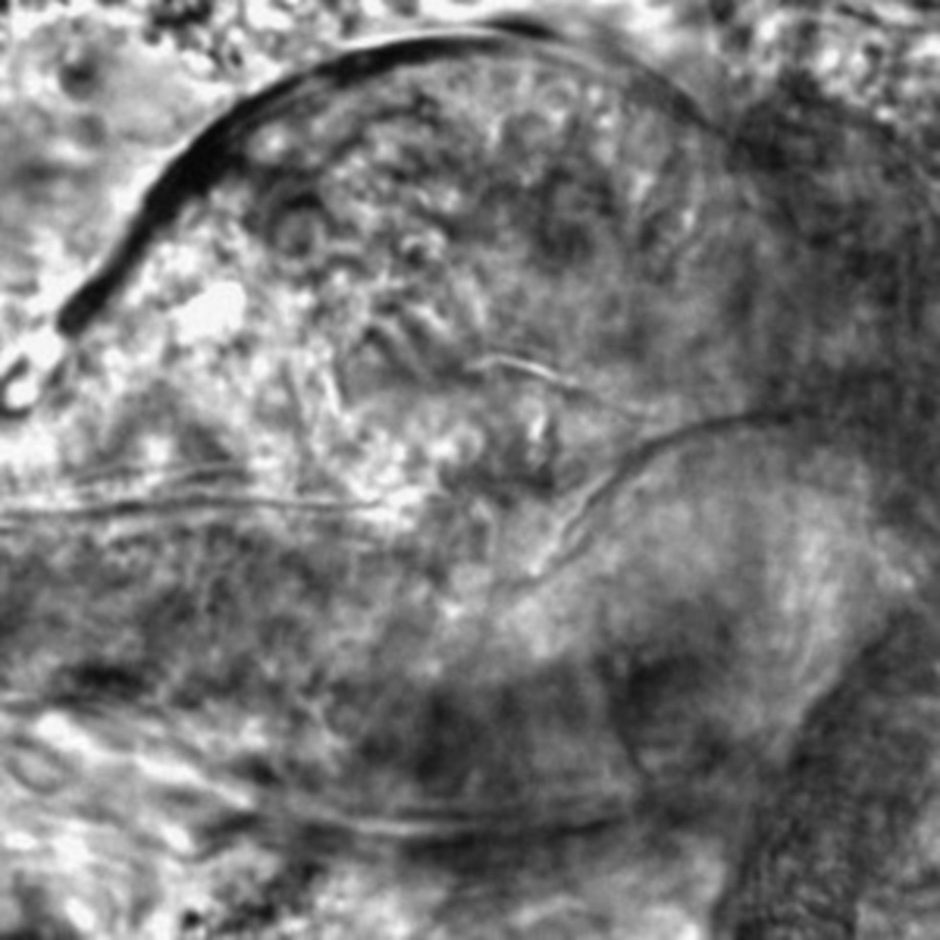 Caenorhabditis elegans - CIL:2586