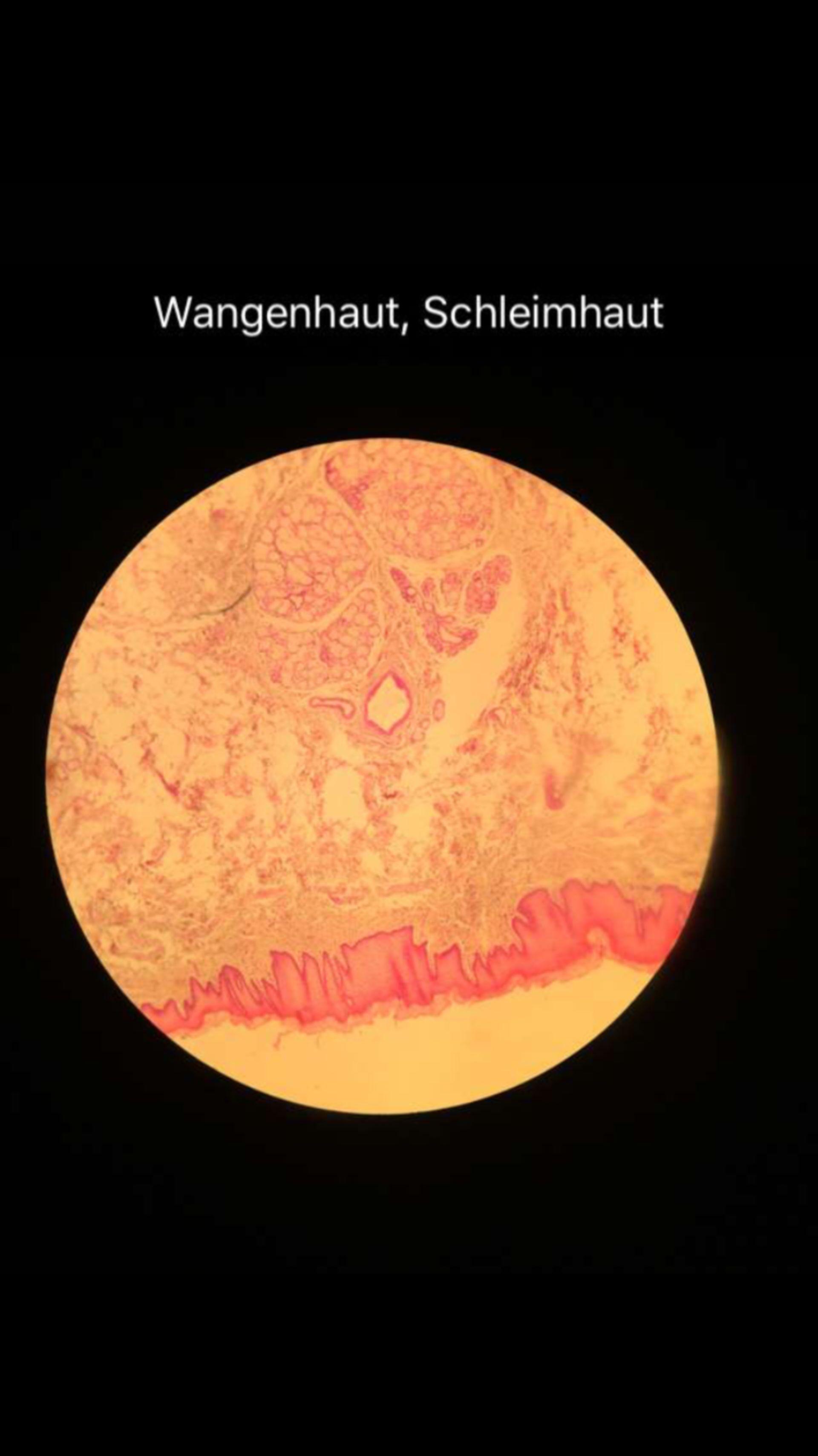 Histologie Wangenschleimhaut