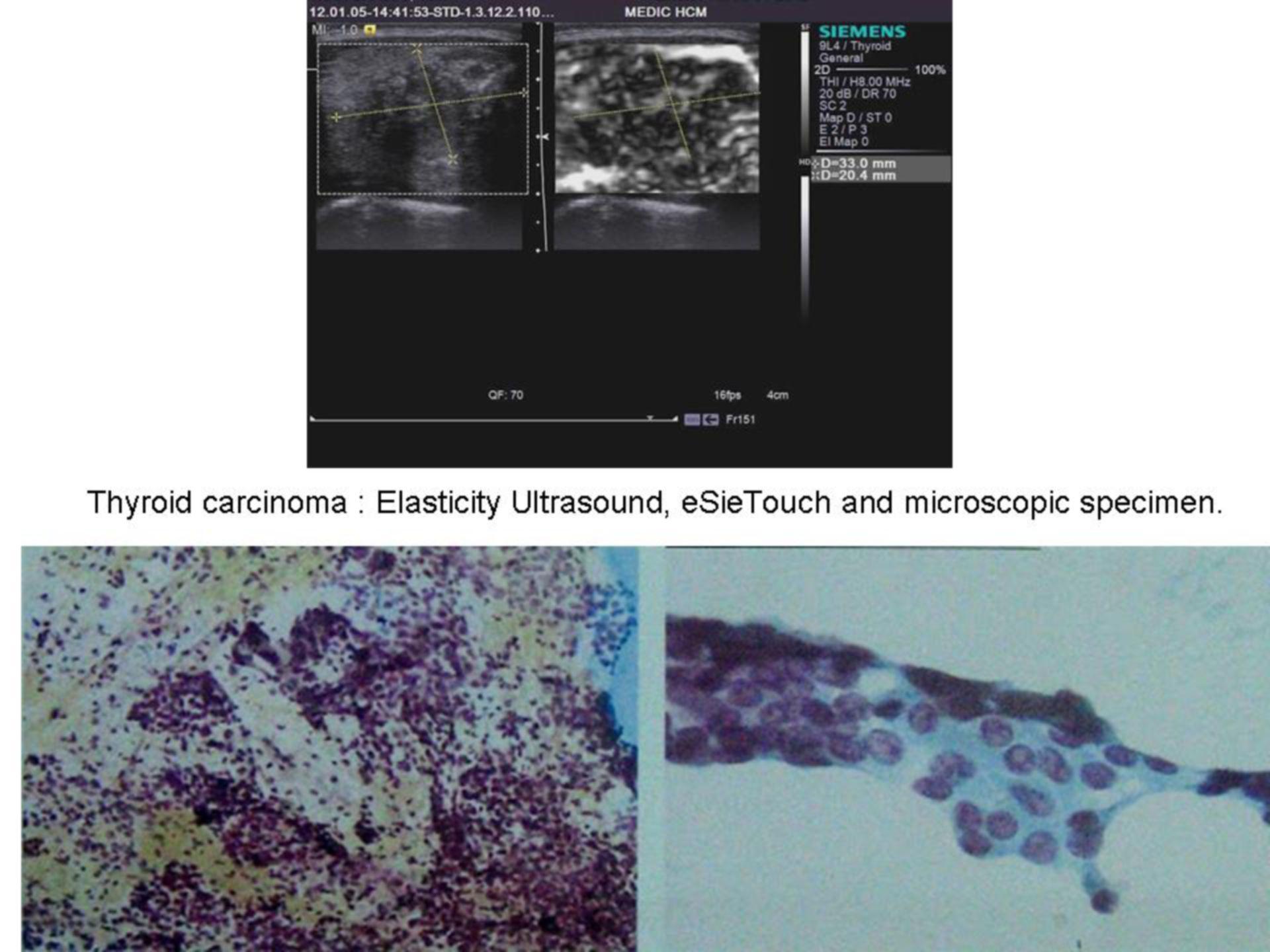 Glándula tiroides (Fibroscan) 1