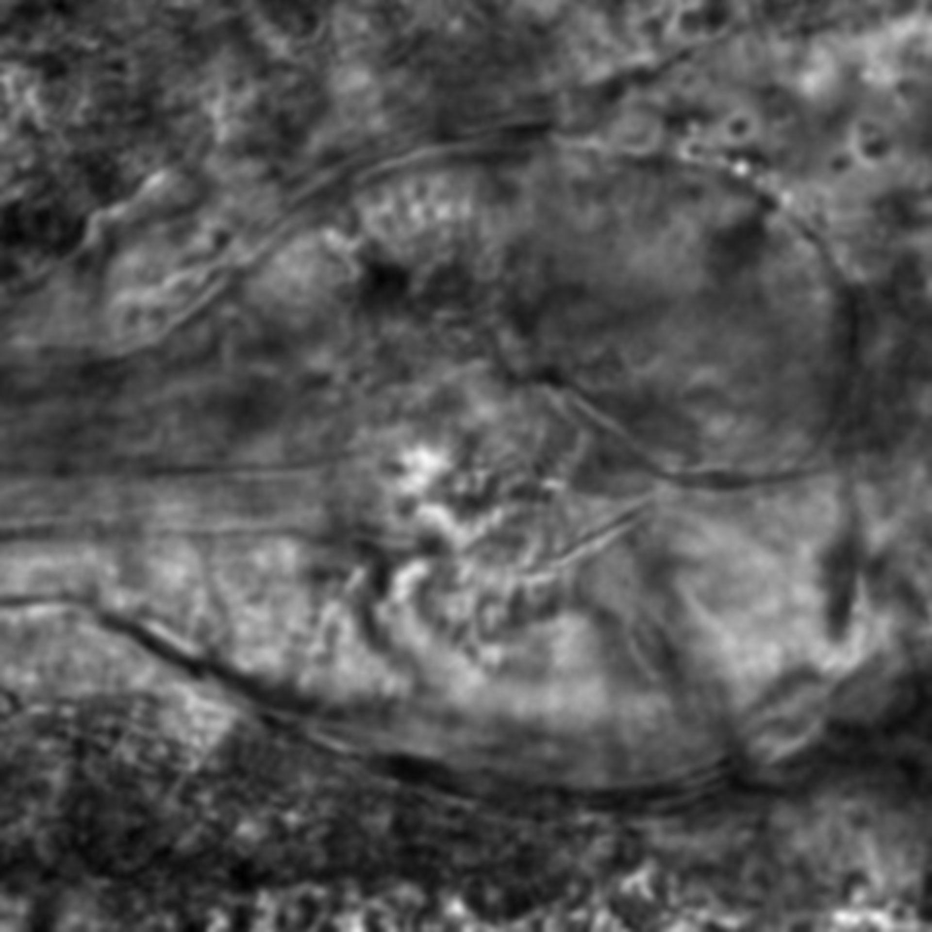 Caenorhabditis elegans - CIL:2733