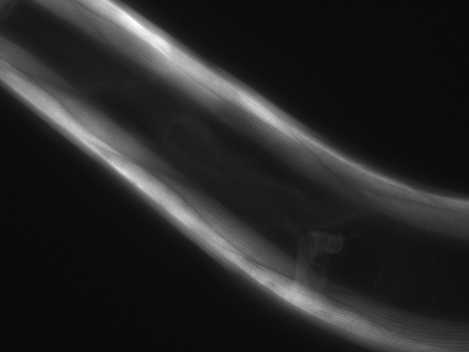 Caenorhabditis elegans (Actin filament) - CIL:1061