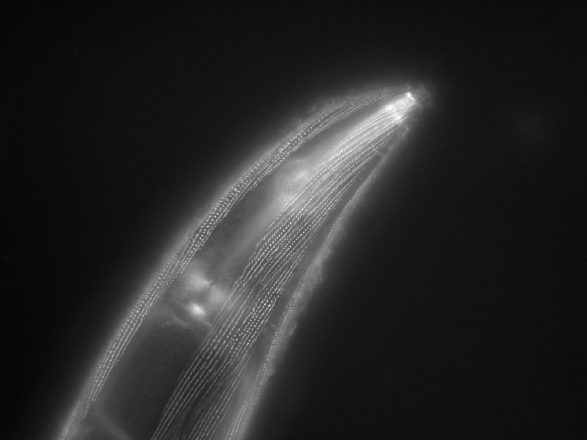 Caenorhabditis elegans (Actin filament) - CIL:1173