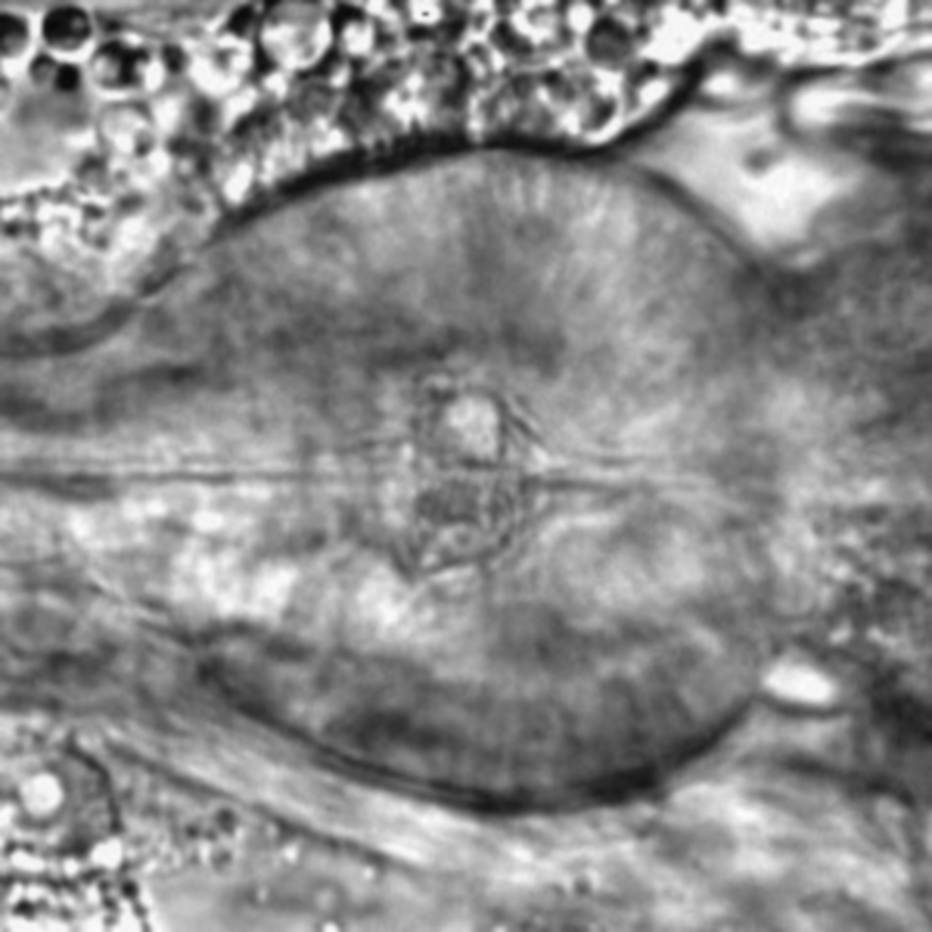 Caenorhabditis elegans - CIL:2142
