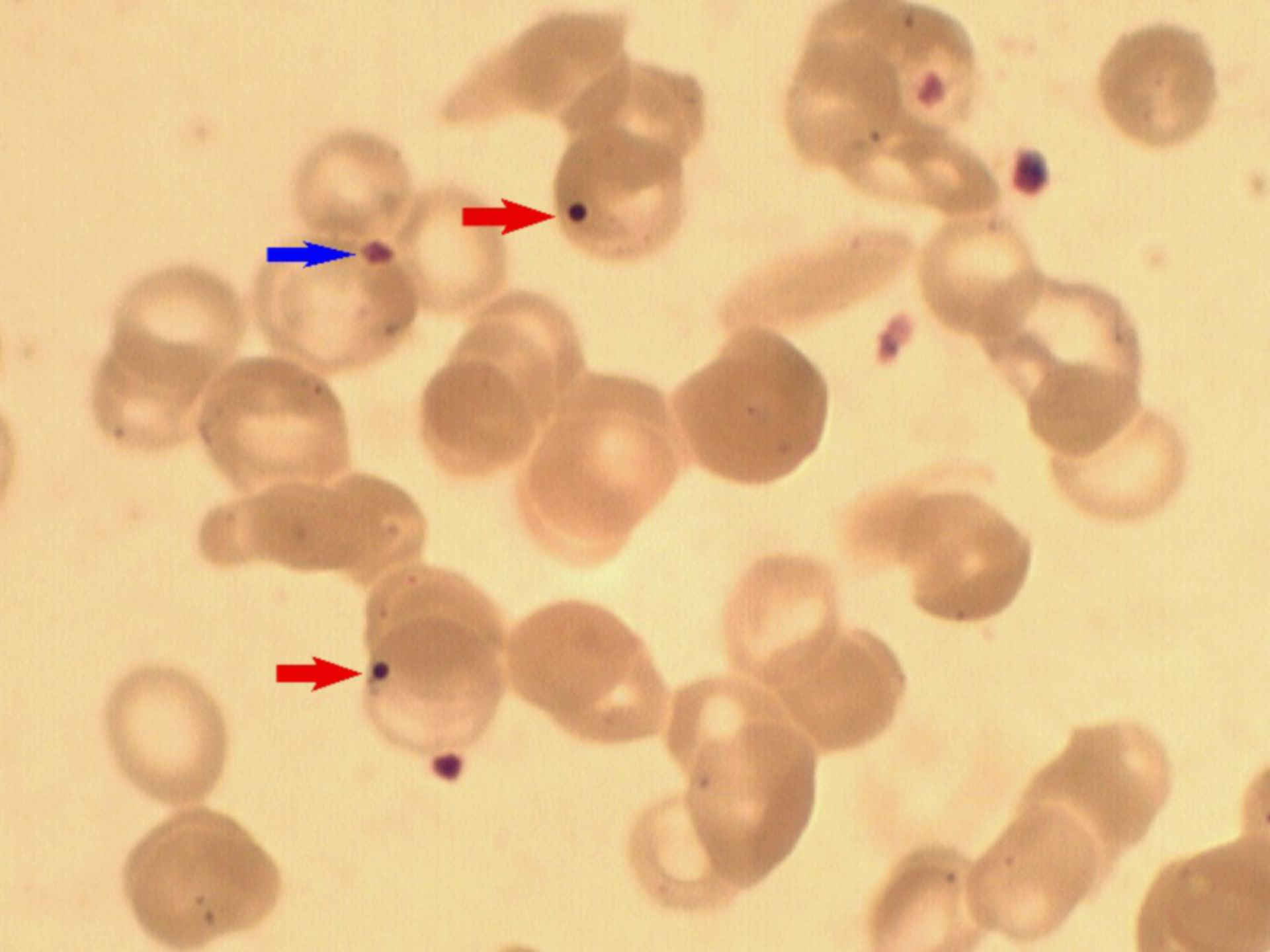 Howell-Jolly-Körperchen im Blutausstrich
