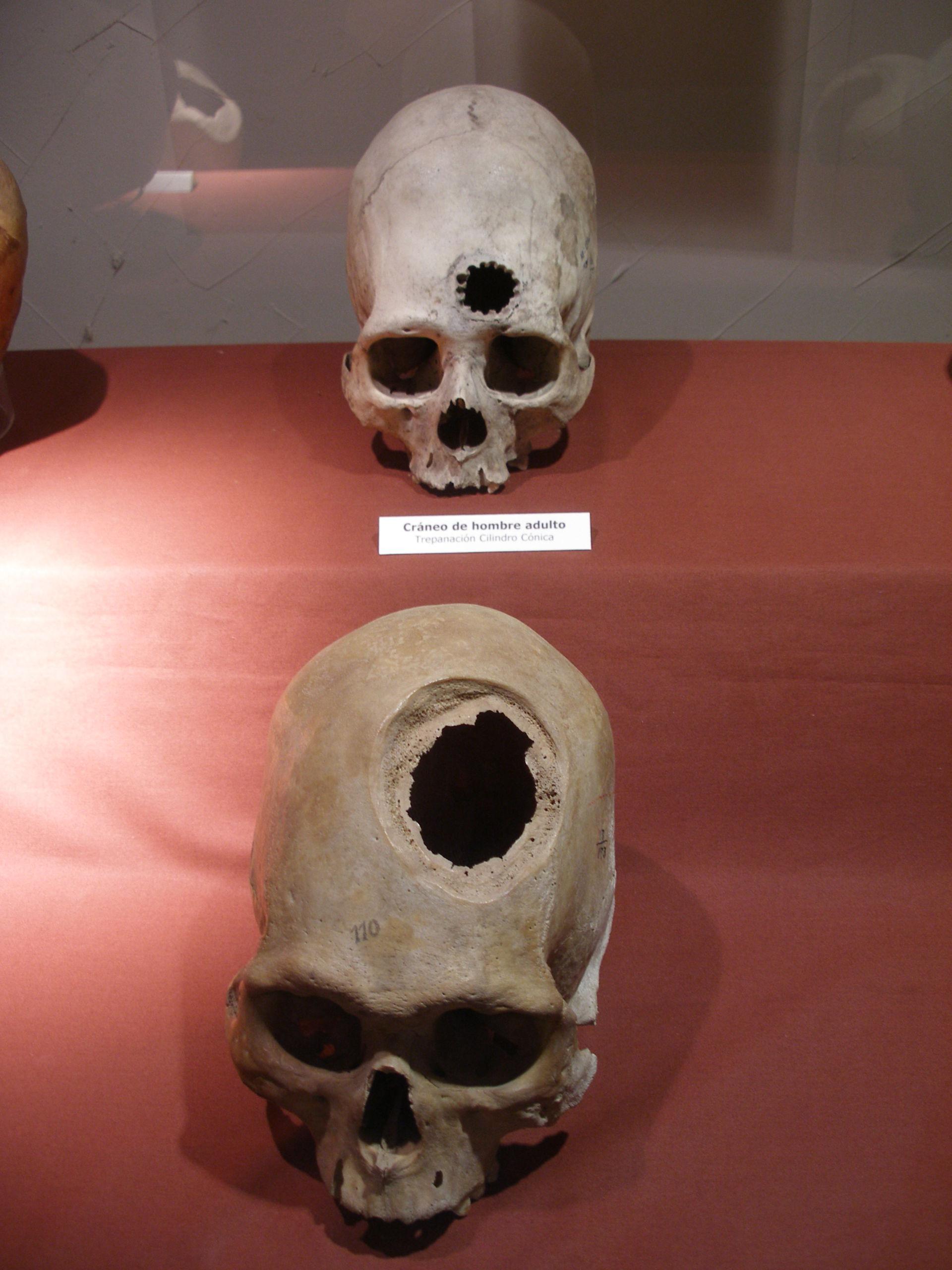 Brain surgery by Incans